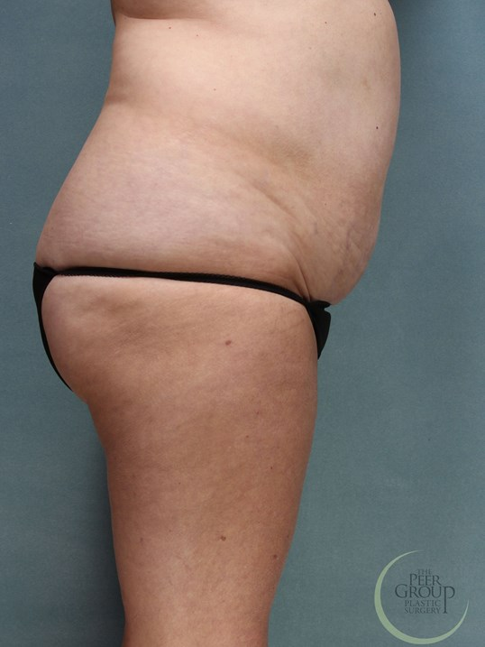Liposuction NJ Before