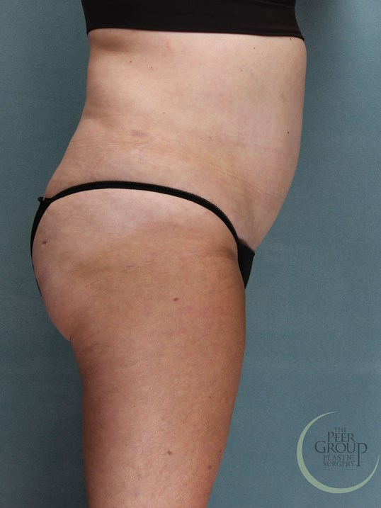 Liposuction NJ After