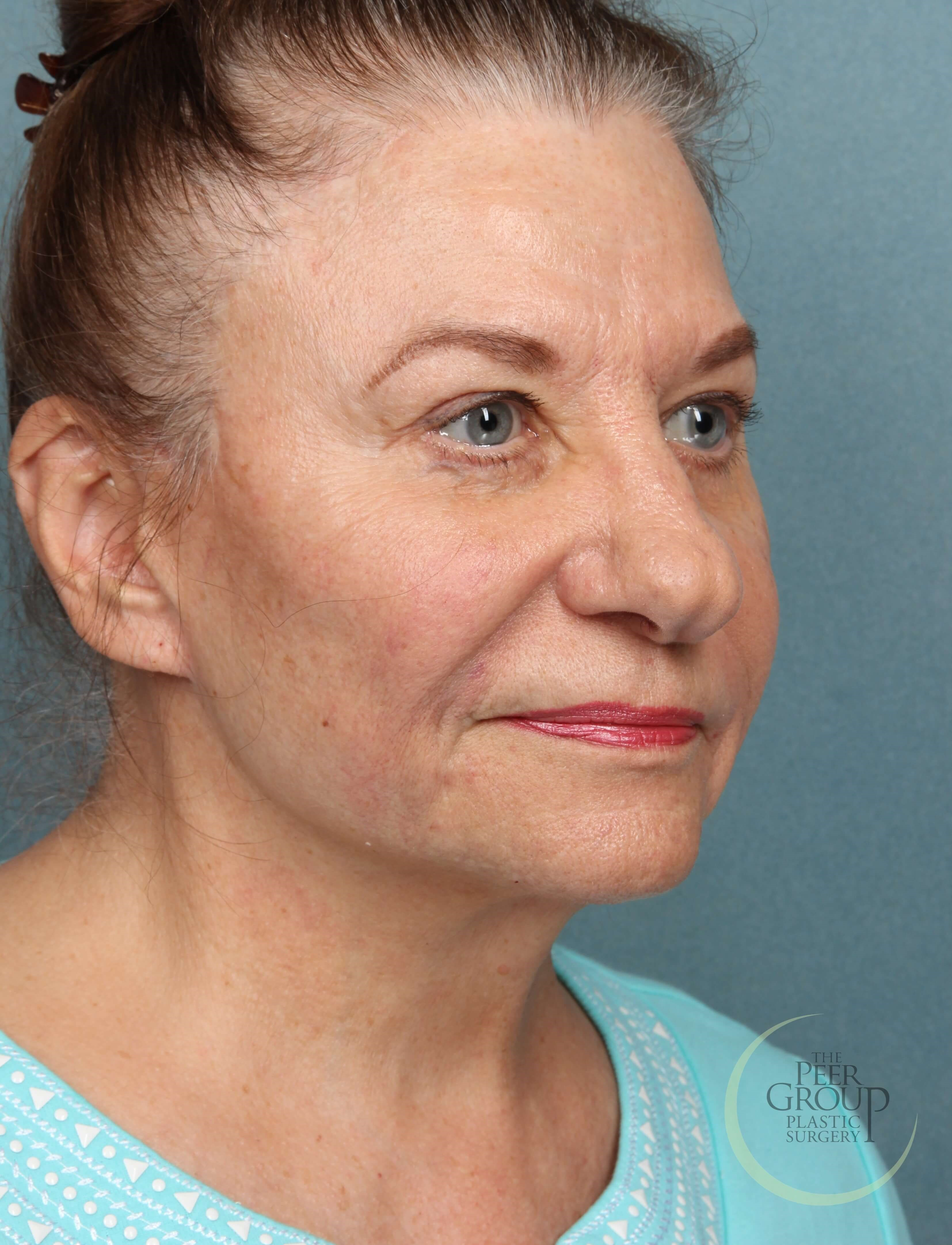 Face Lift Surgery NJ After