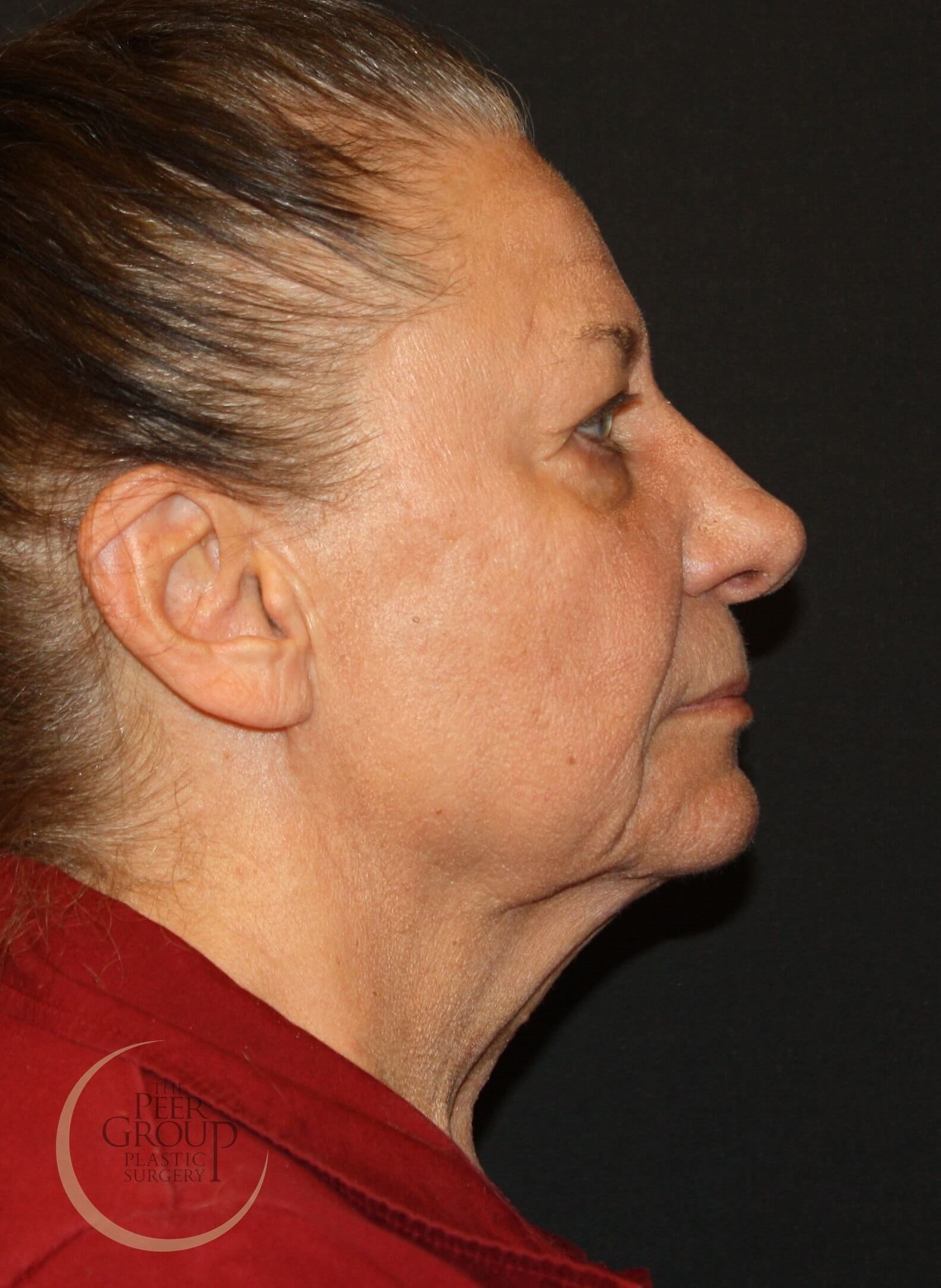 NJ Facial Rejuvenation Before