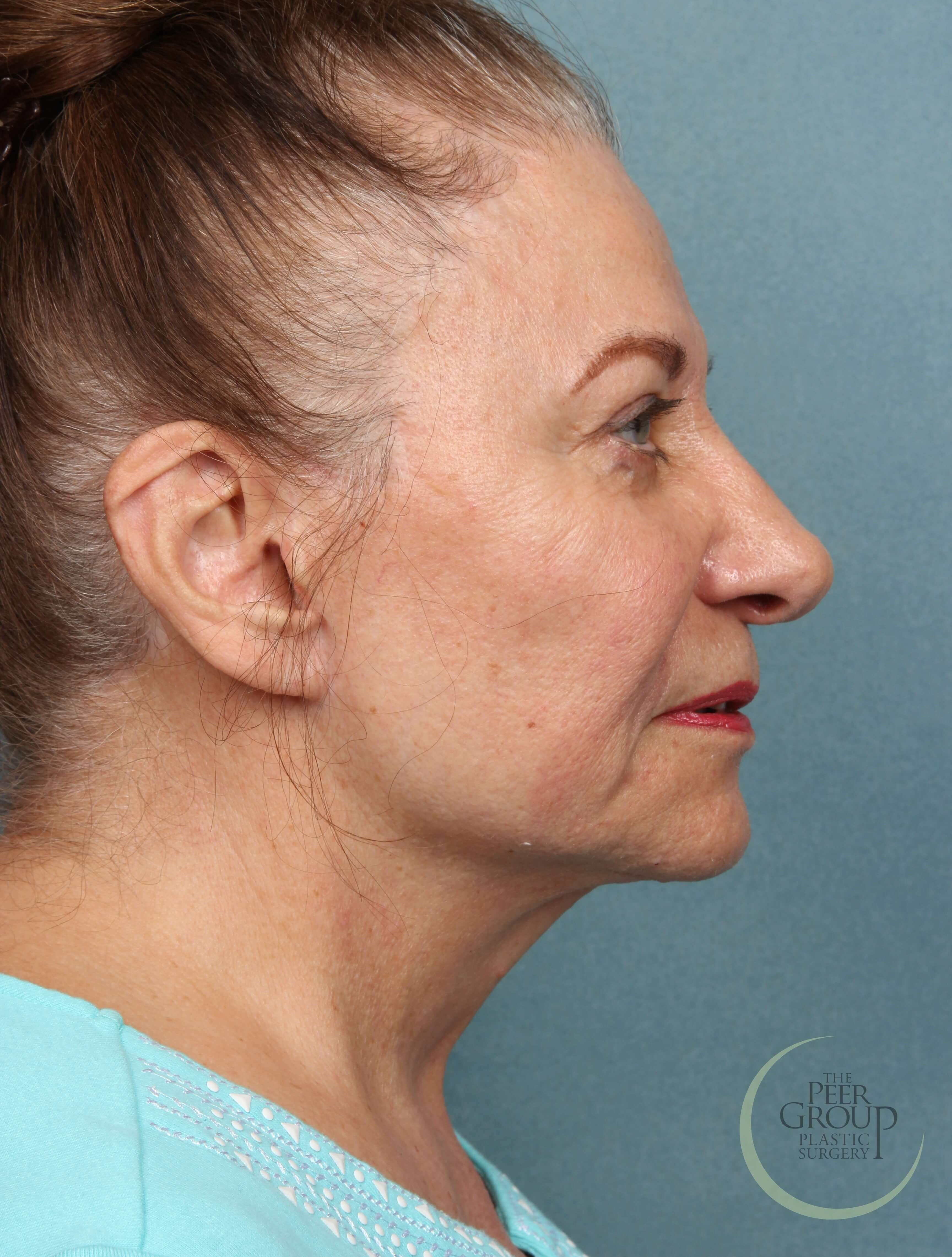 NJ Facial Rejuvenation After