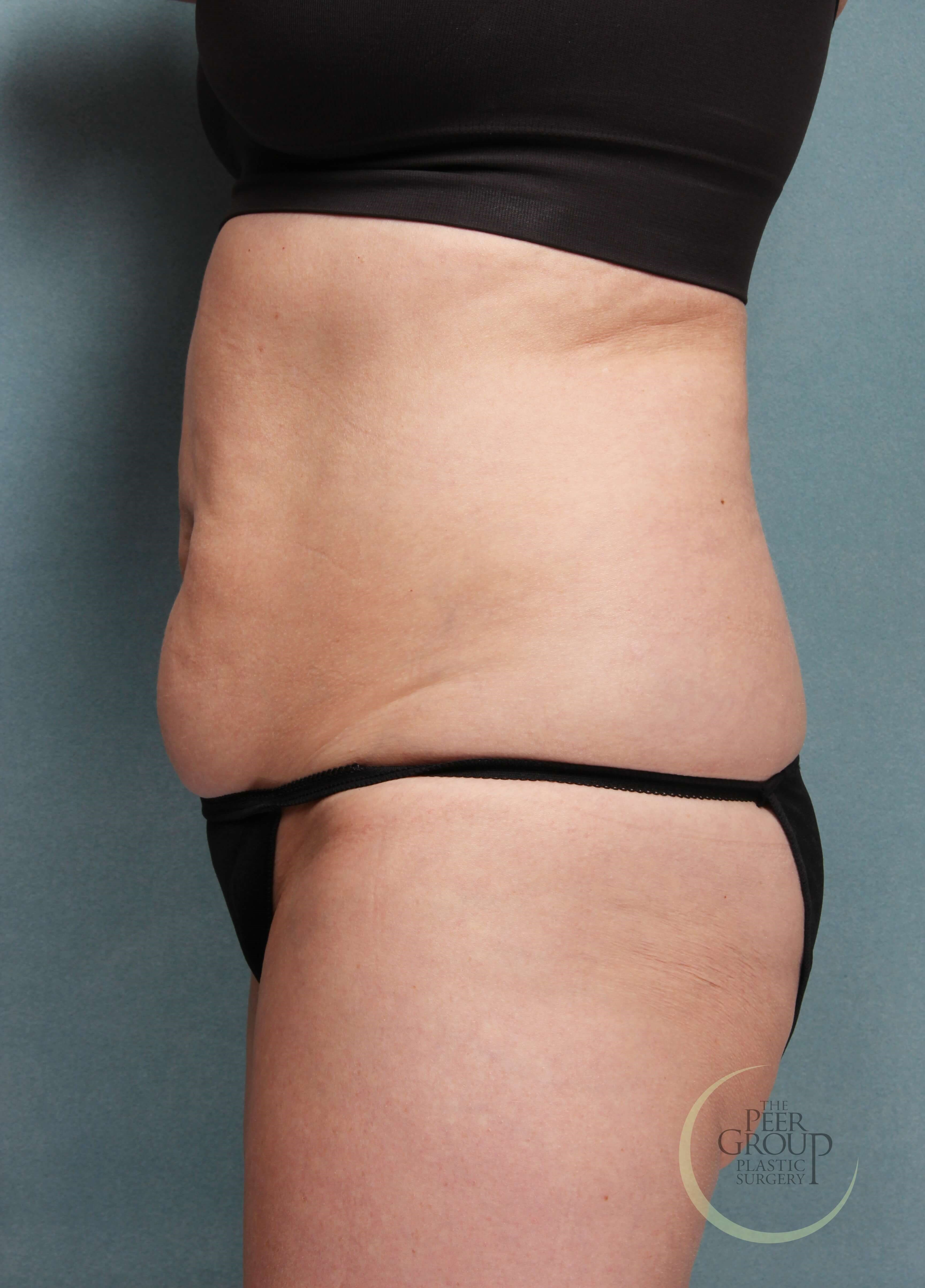 CoolSculpting New Jersey Before