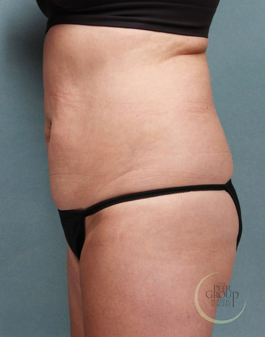 CoolSculpting New Jersey After