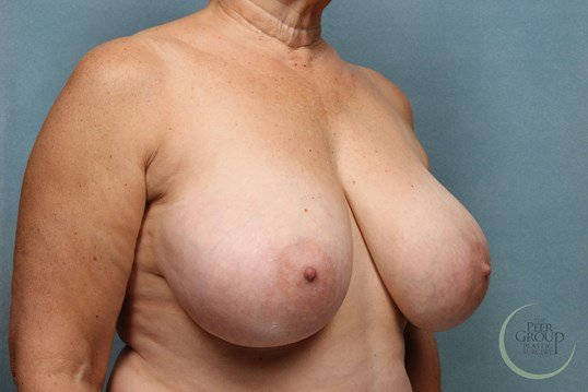 Breast Reduction New Jersey Before
