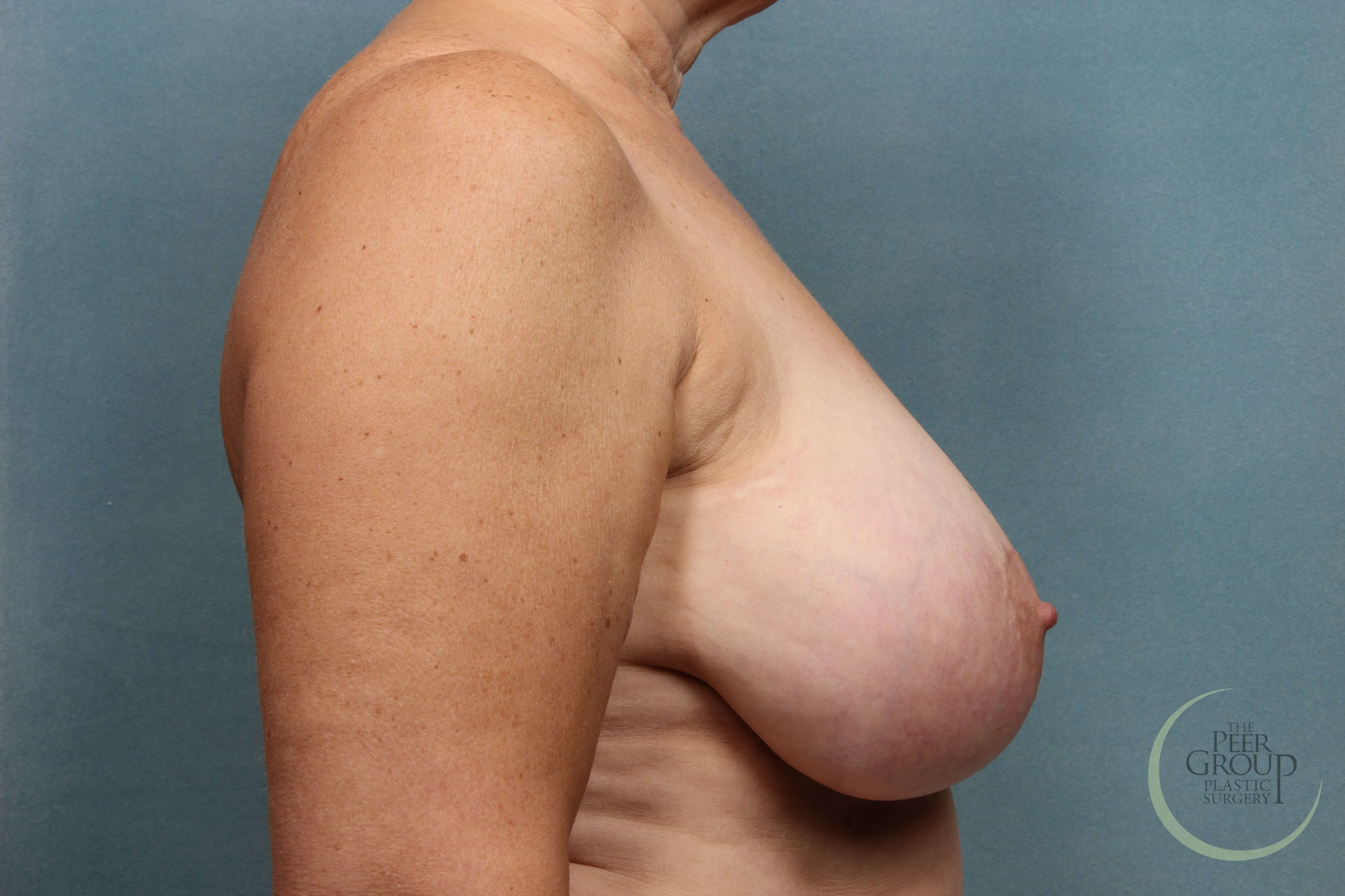 New Jersey Breast Reduction Before