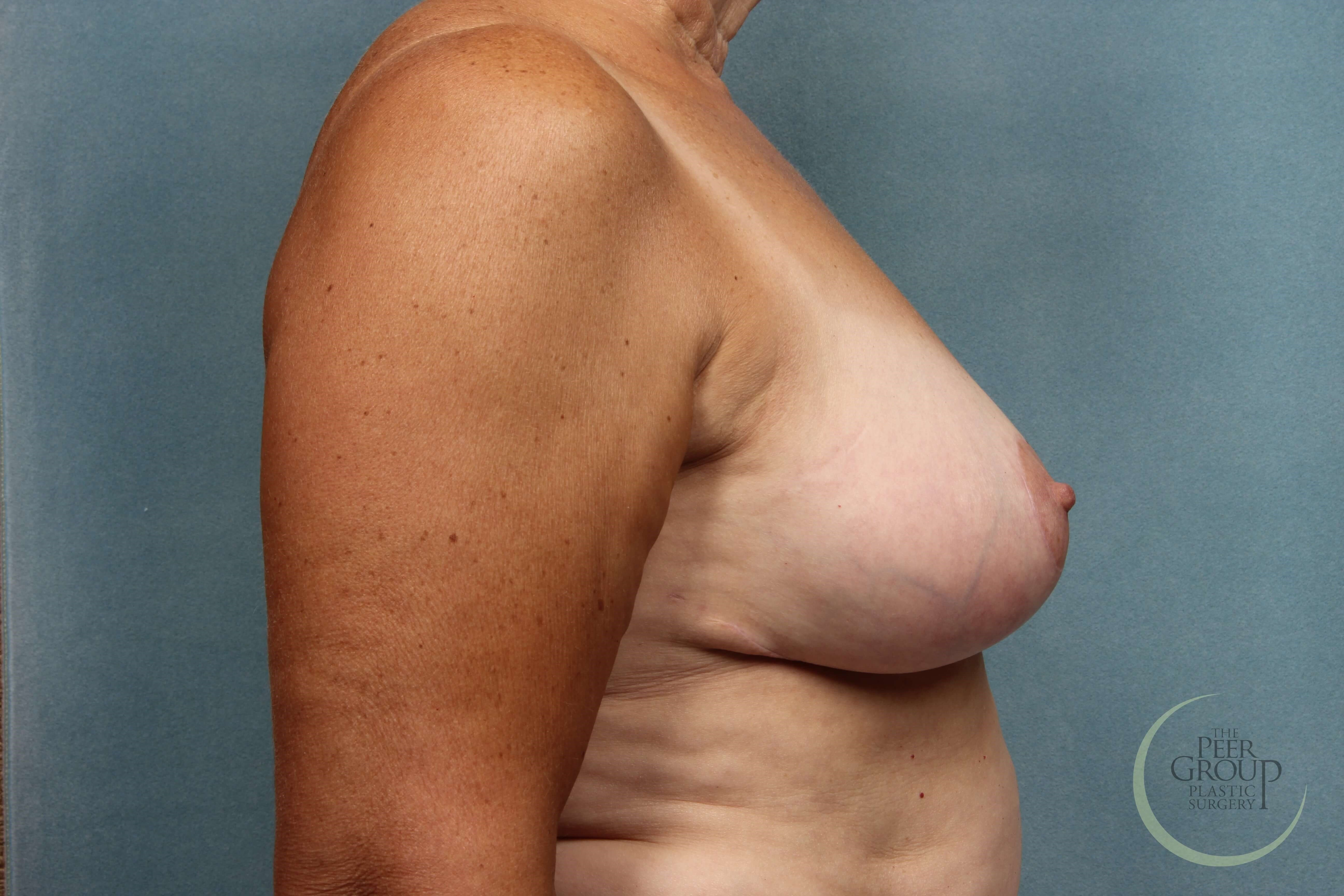 New Jersey Breast Reduction After