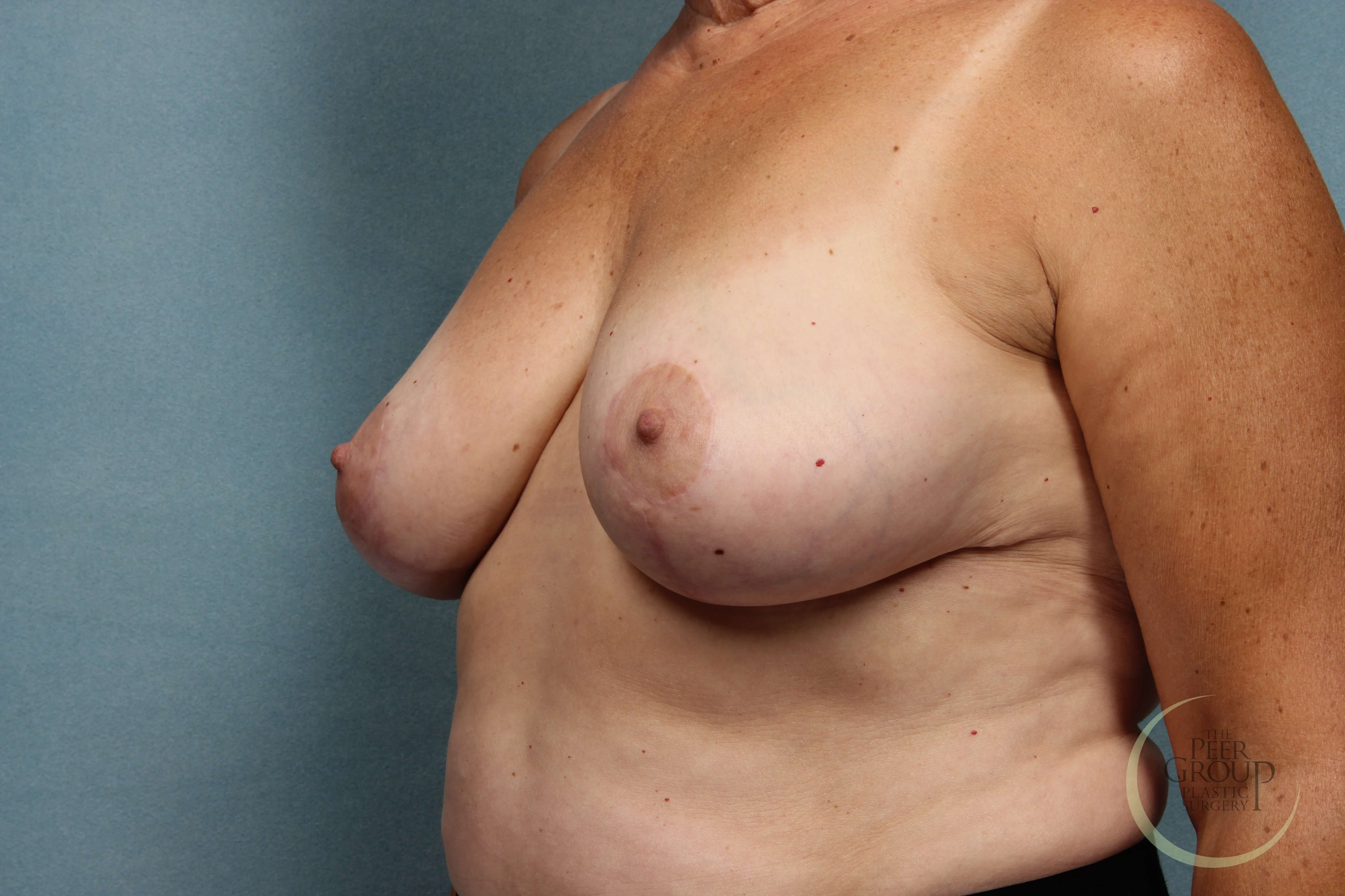 Breast Reduction NJ After