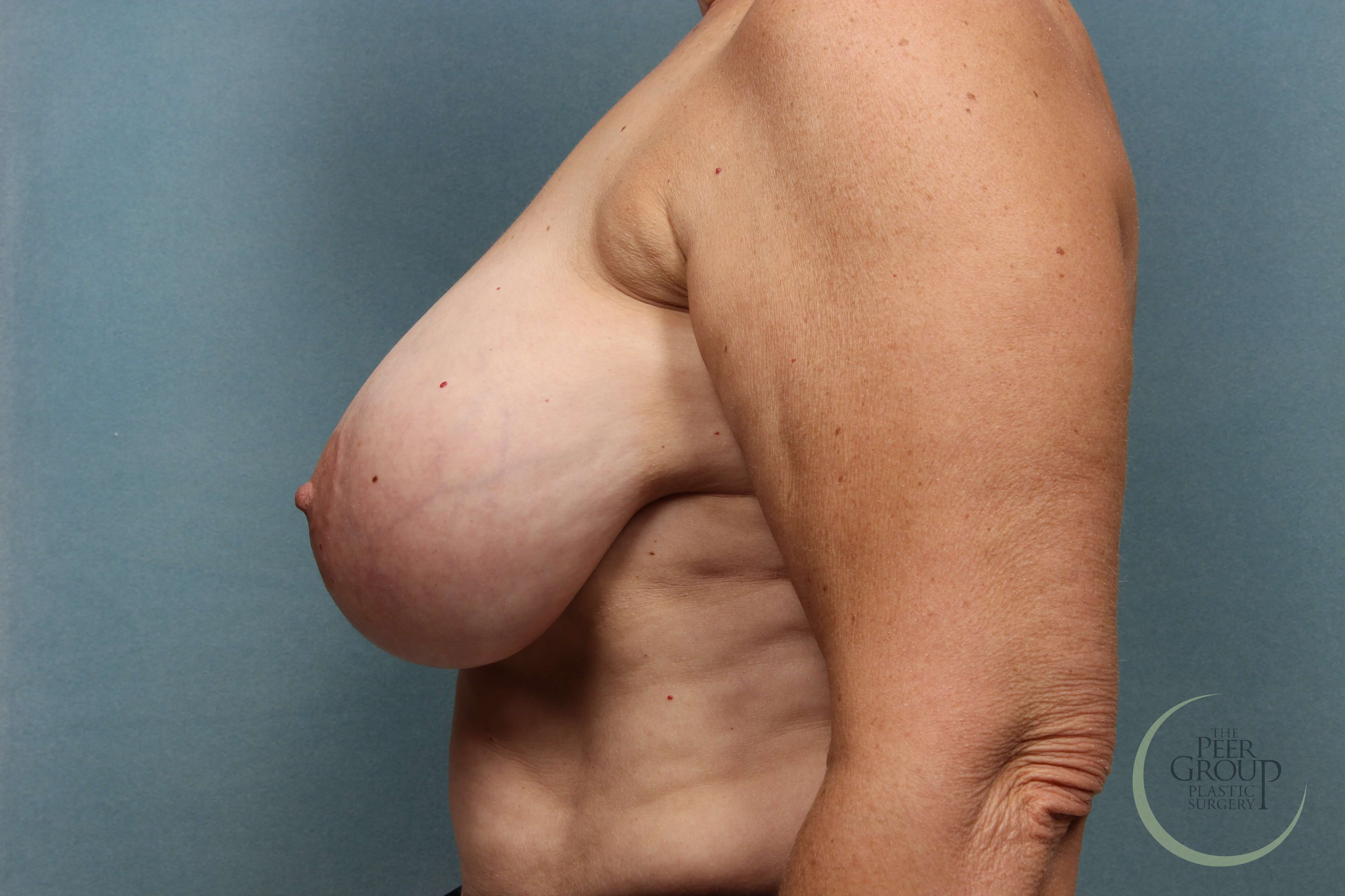 NJ Breast Reduction Before