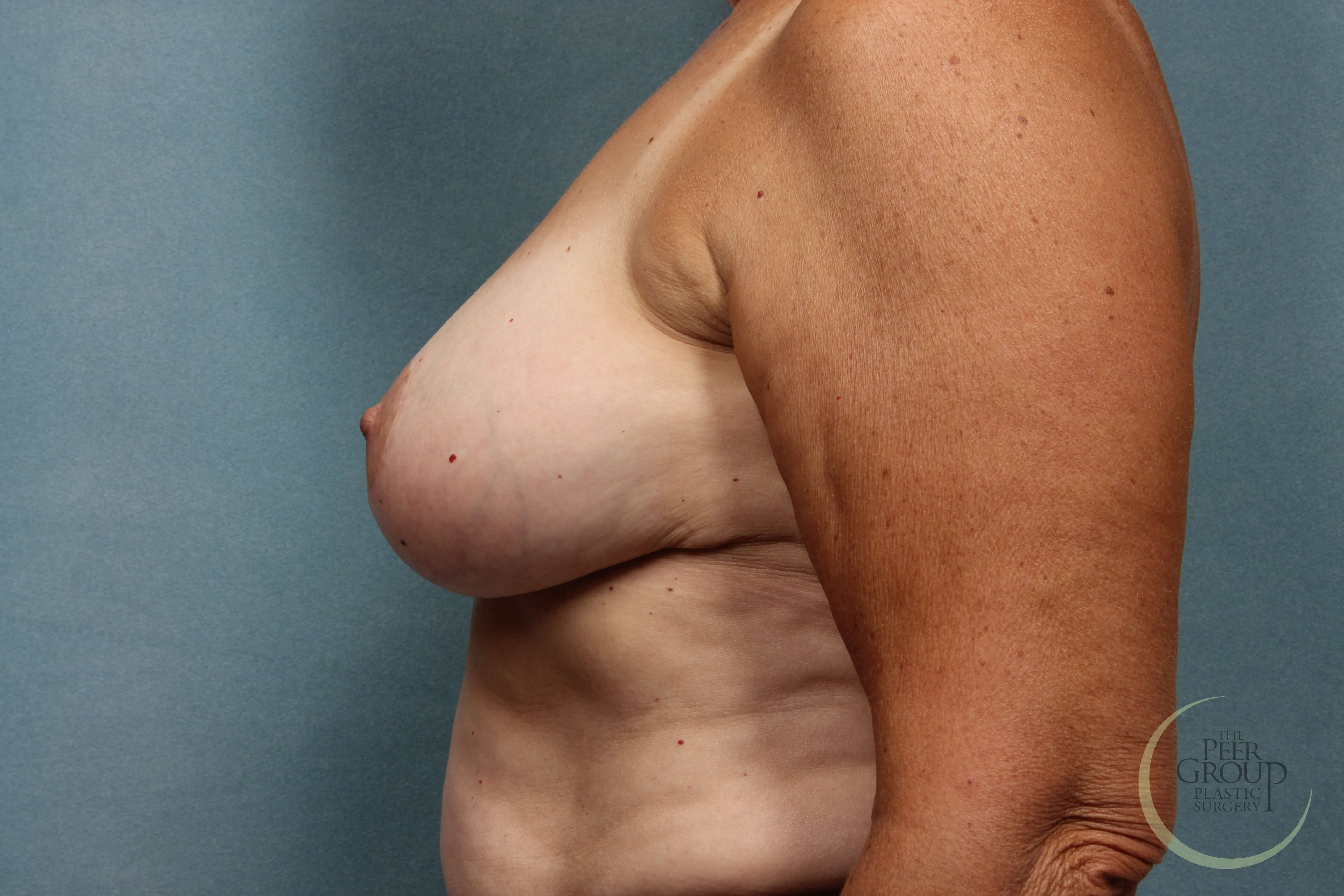 NJ Breast Reduction After