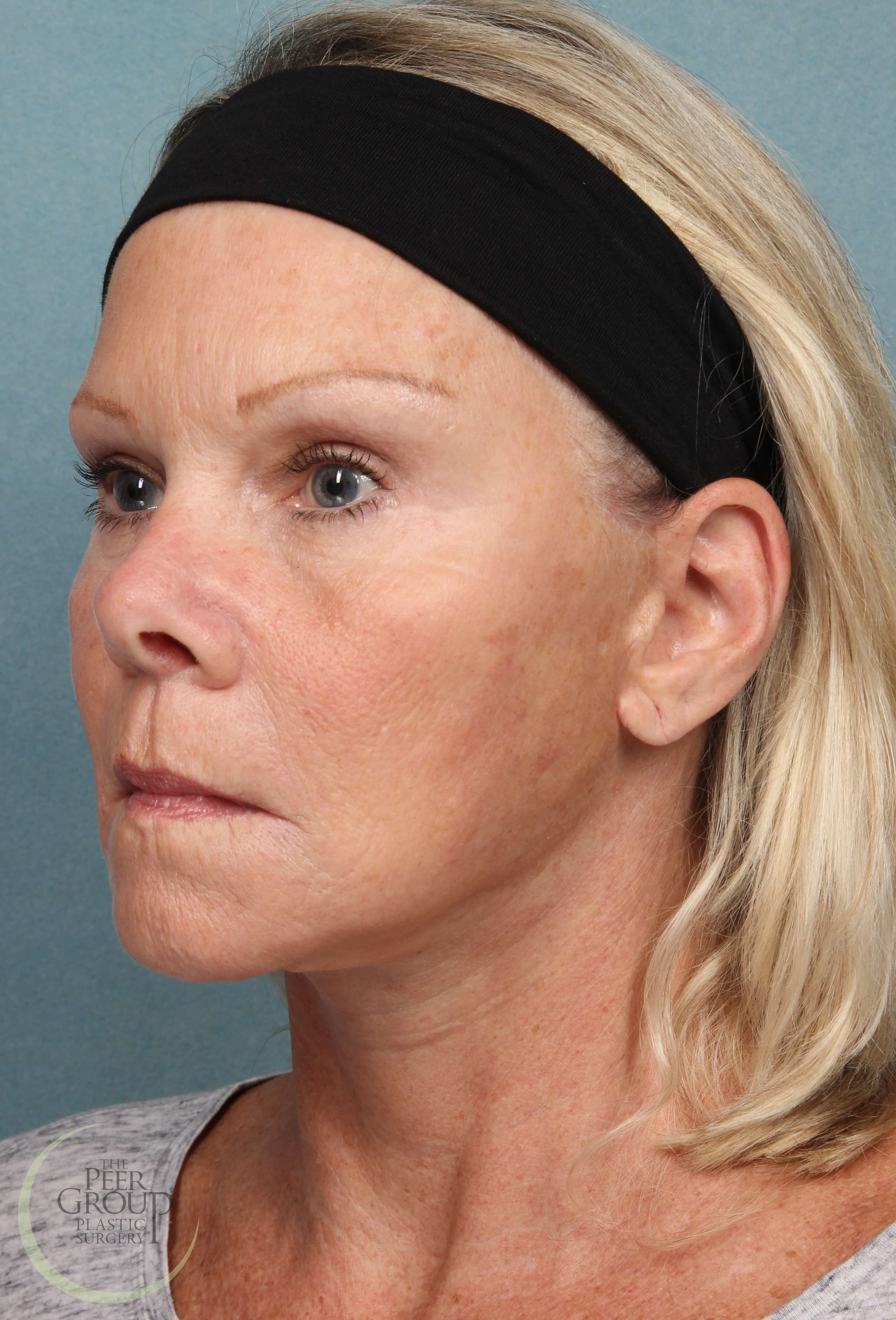Face Lift Surgery New Jersey After