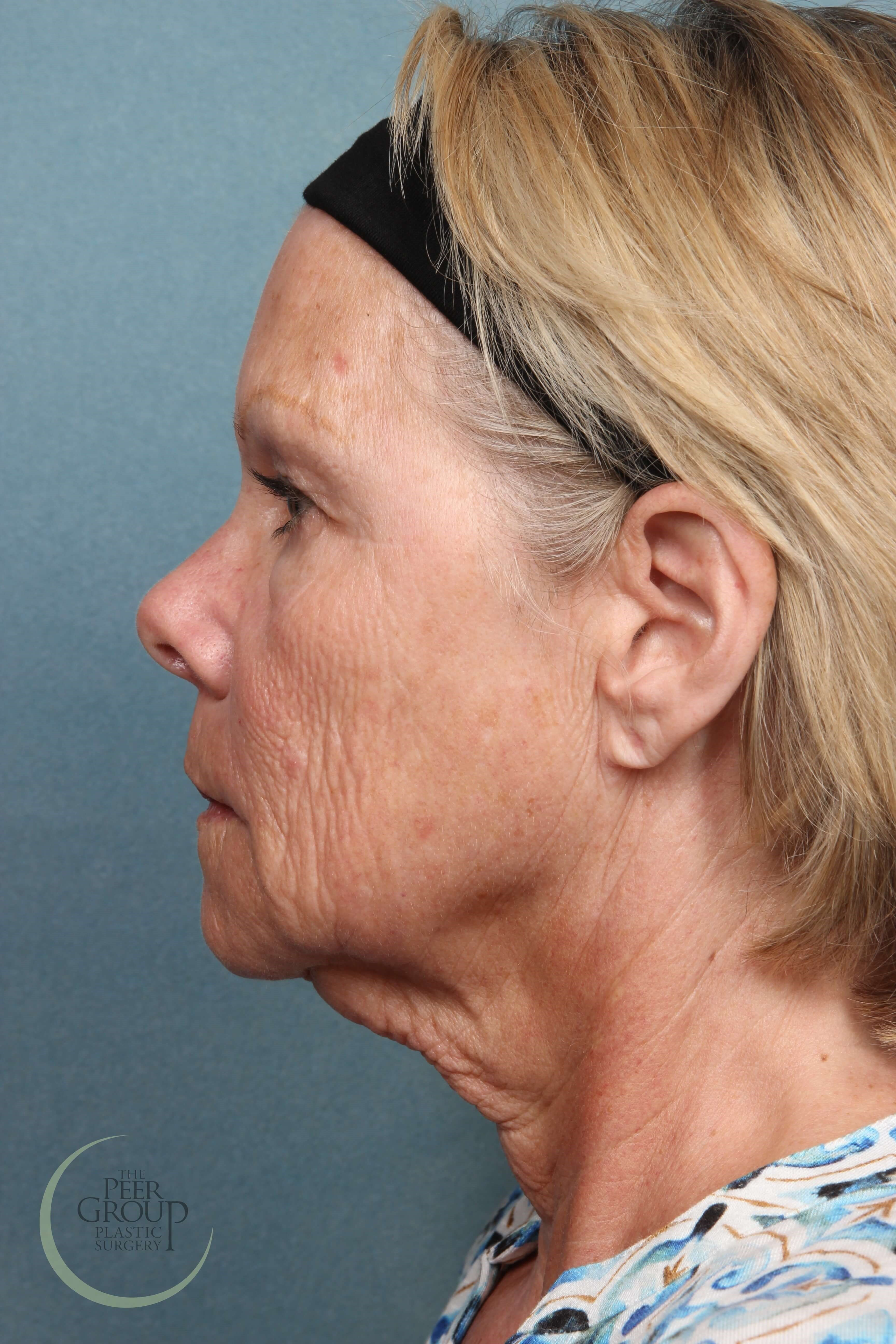 Facelift Surgery NJ Before