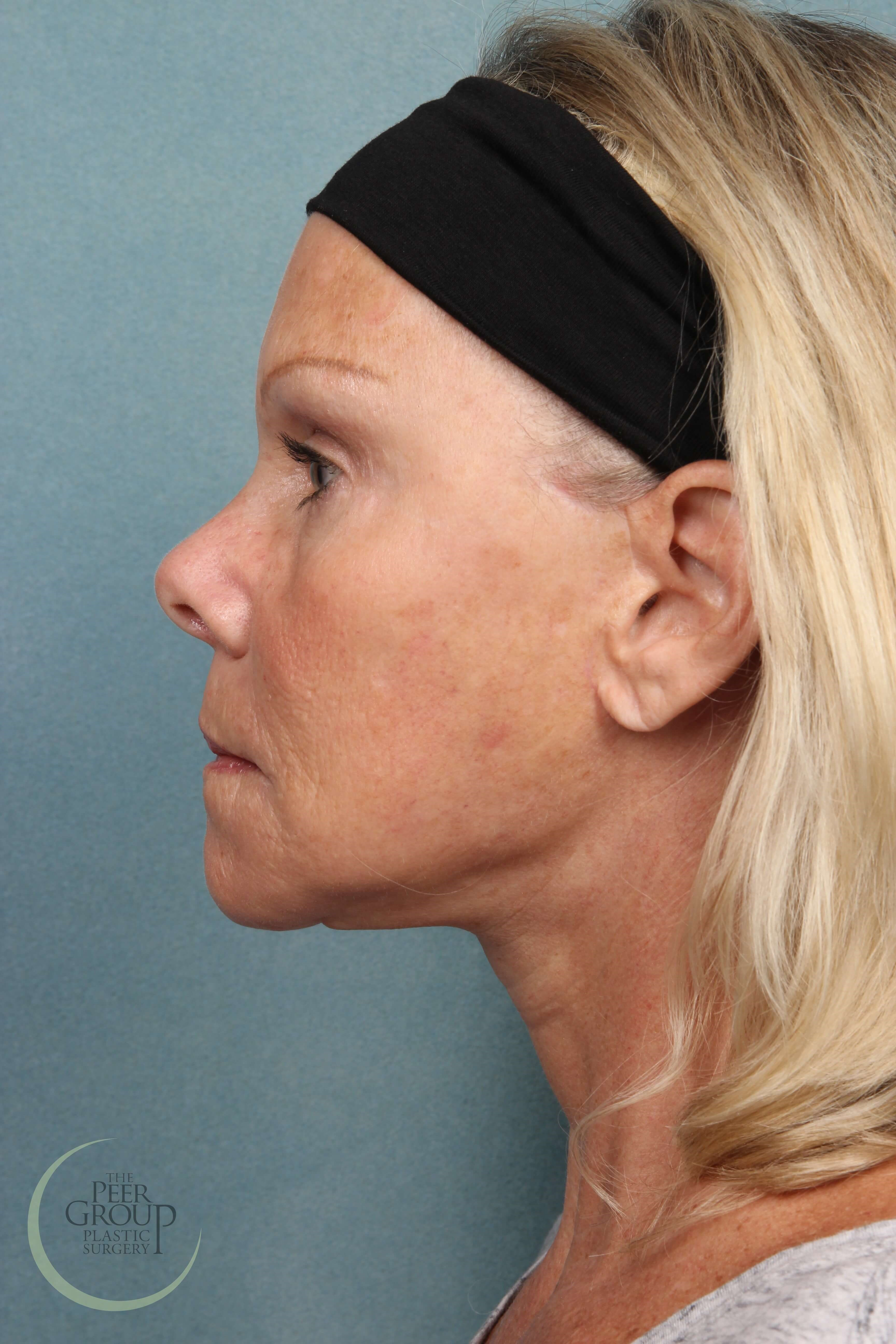 Facelift Surgery NJ After