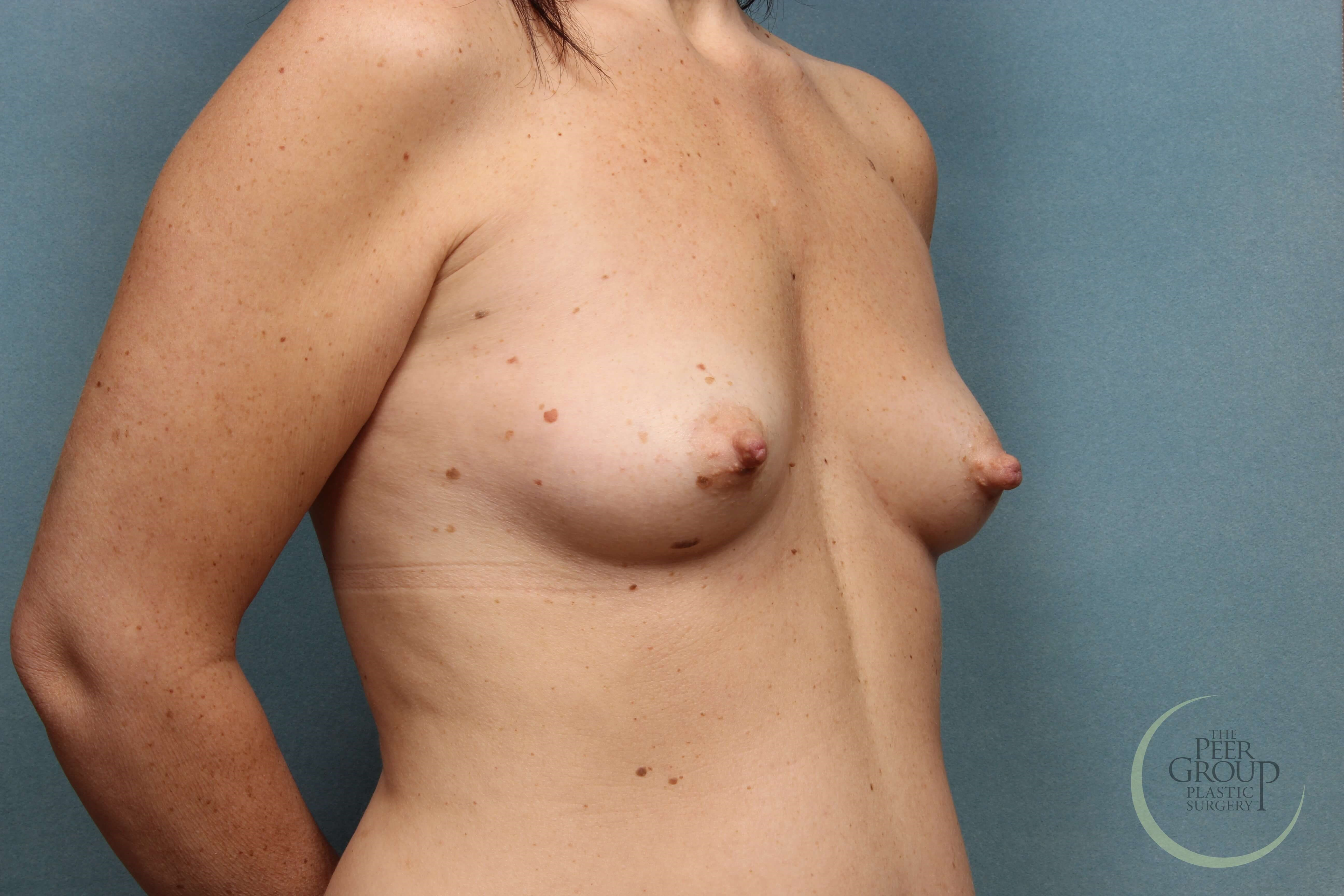 Breast Implants NJ Before