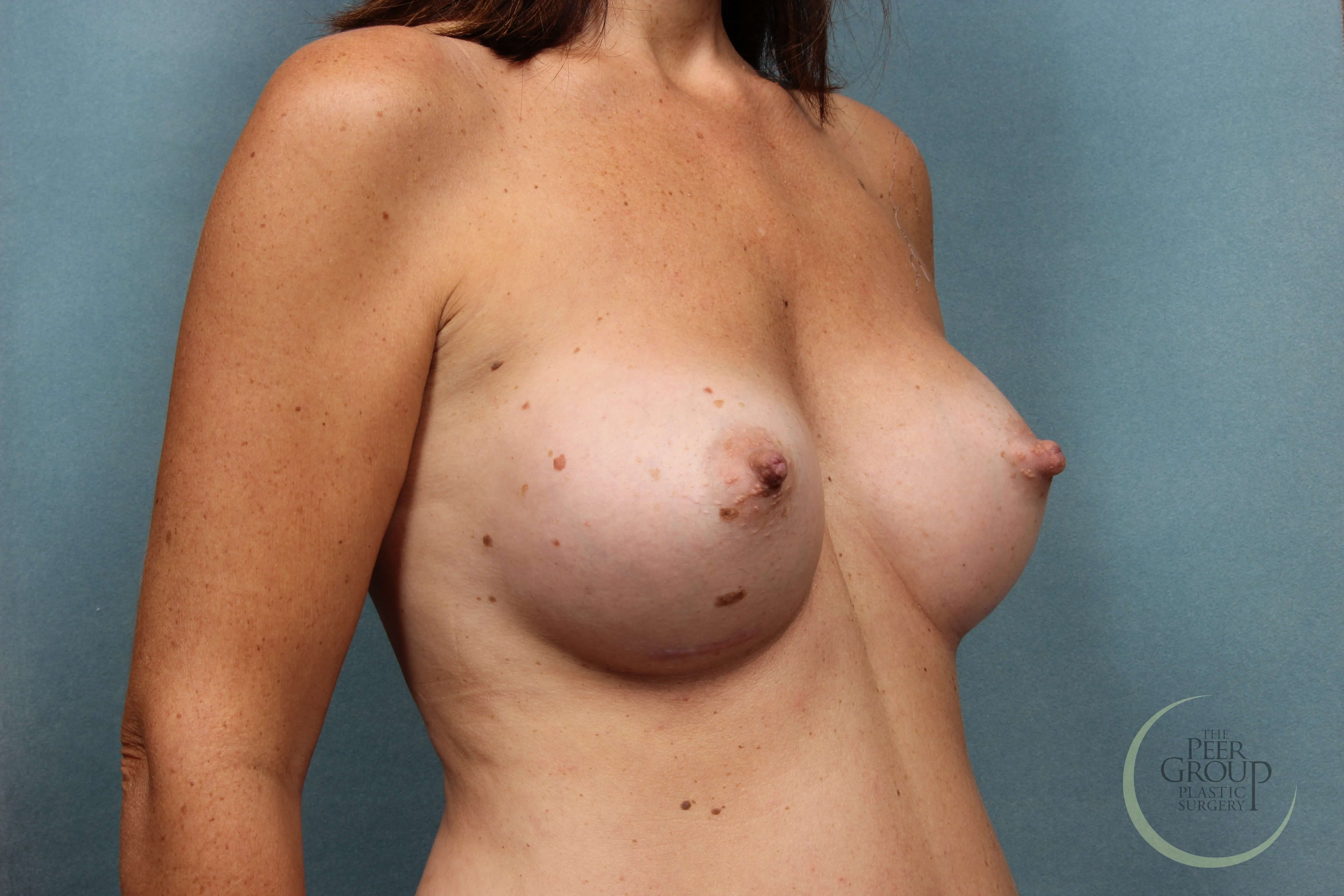 Breast Implants NJ After