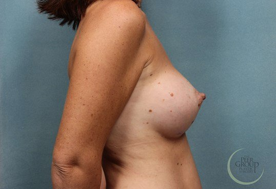 Breast Augmentation NJ After