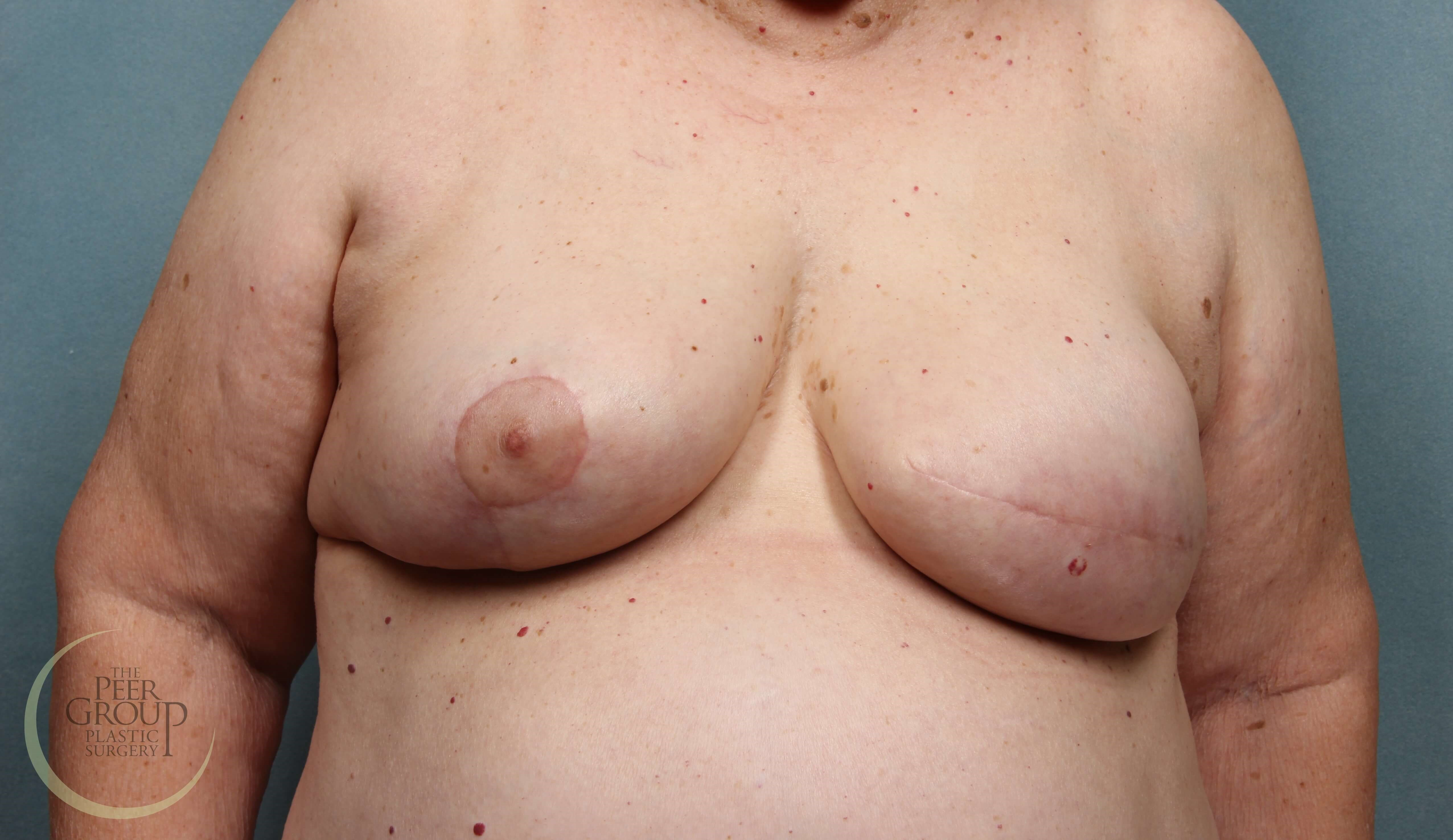 Breast Reconstruction NJ After