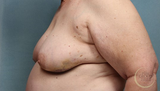 NJ Breast Reconstruction Before