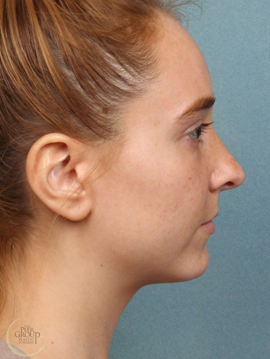 Kybella for Chin Fat Reduction 3  Months After Kybella