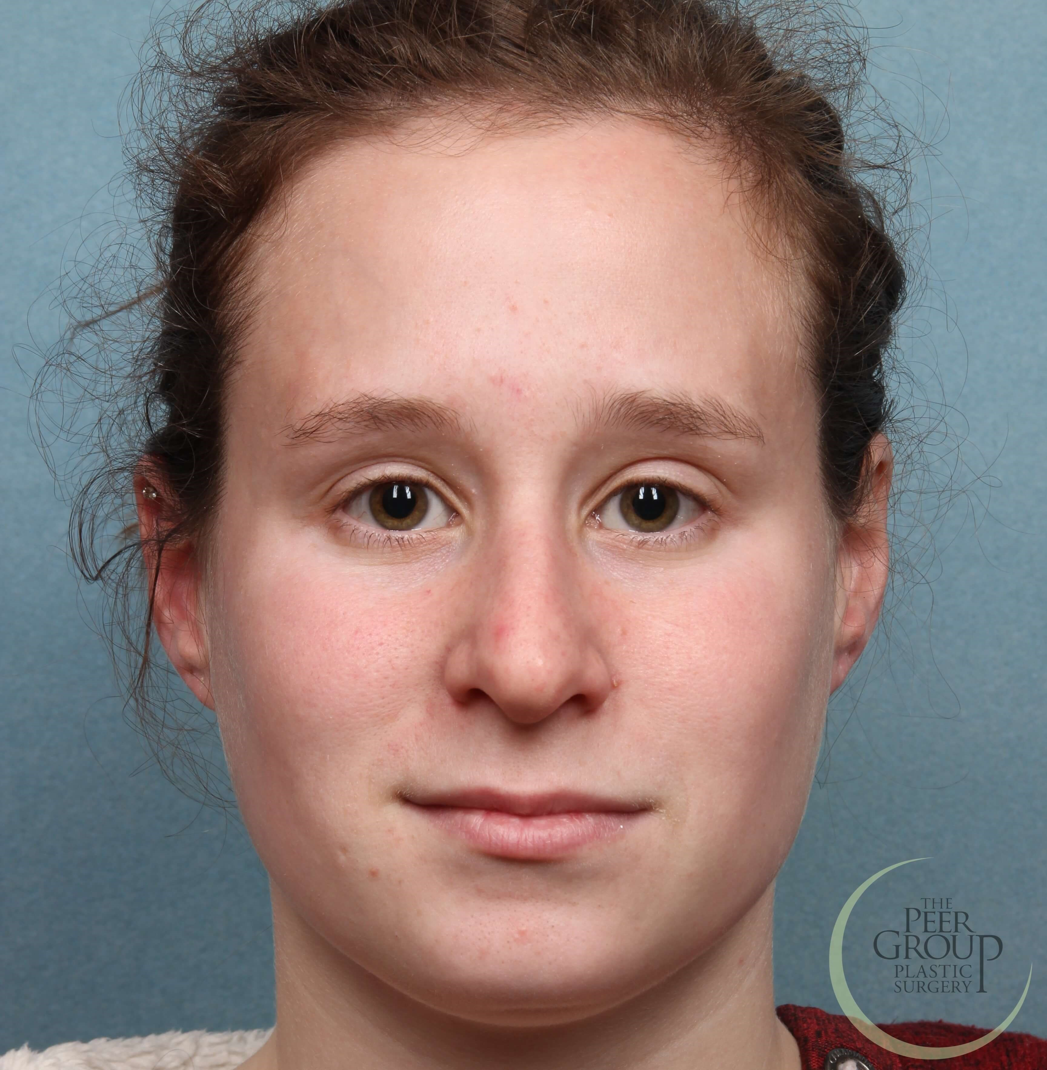 New Jersey Rhinoplasty Before