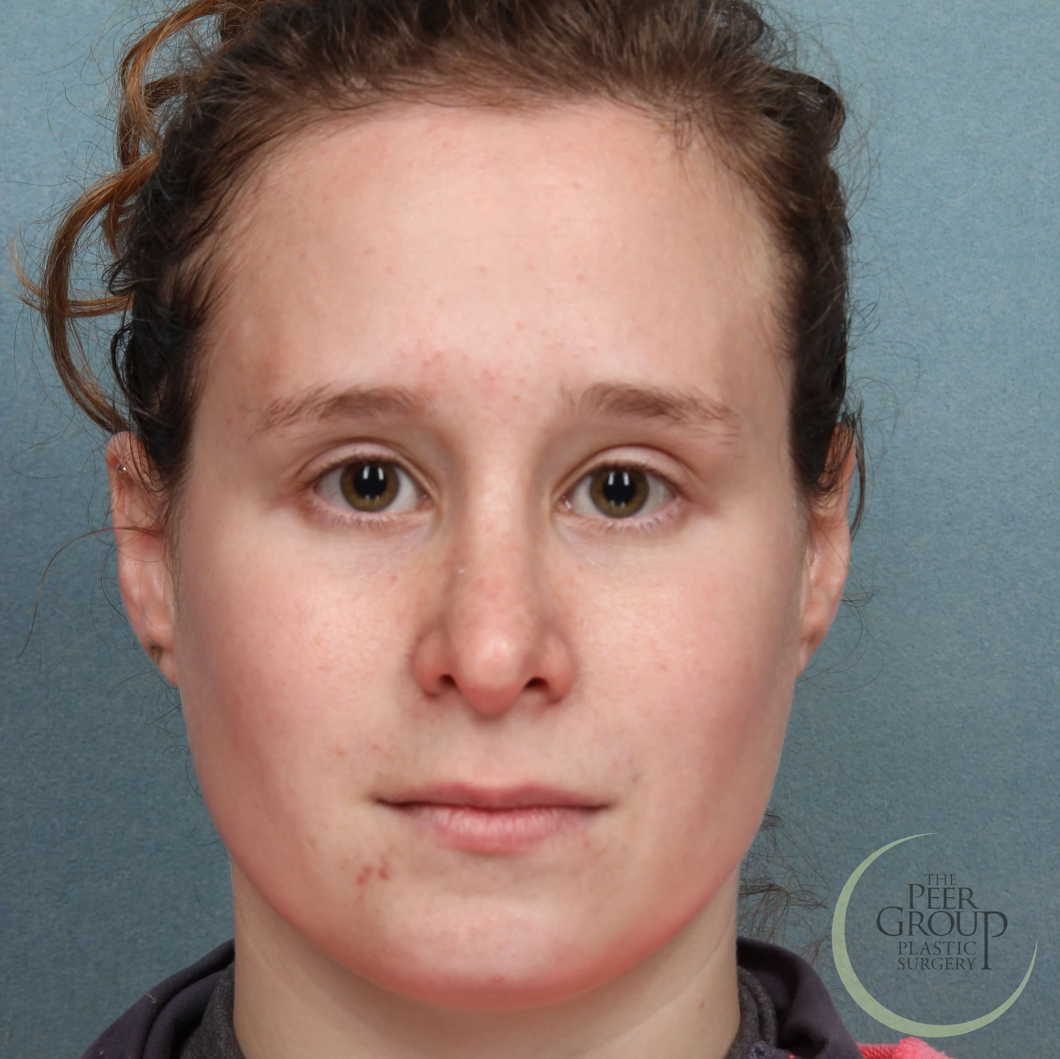 New Jersey Rhinoplasty After