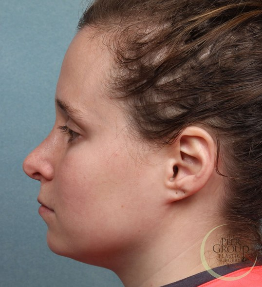 Rhinoplasty NJ After