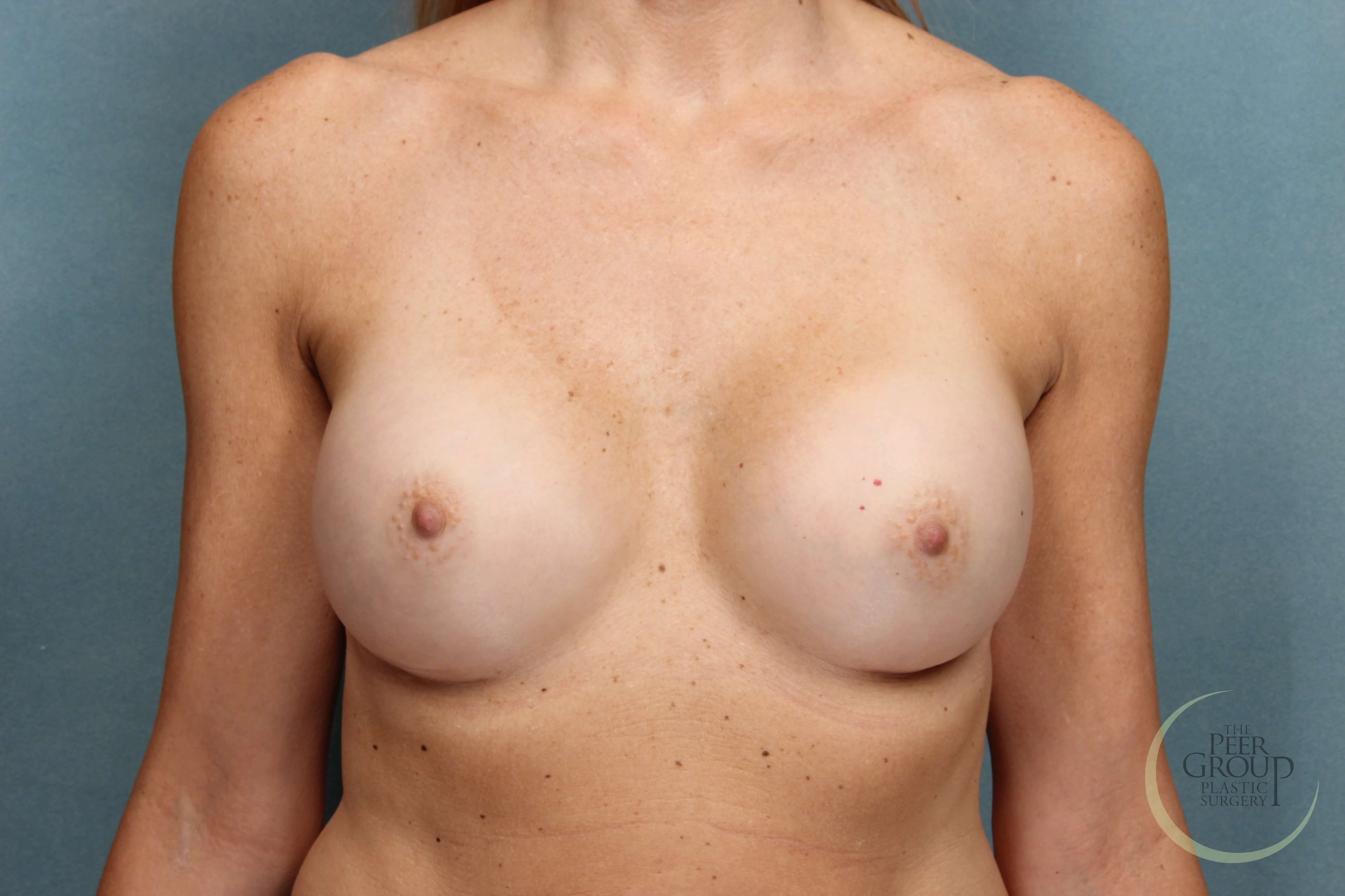 New Jersey Breast Implants After