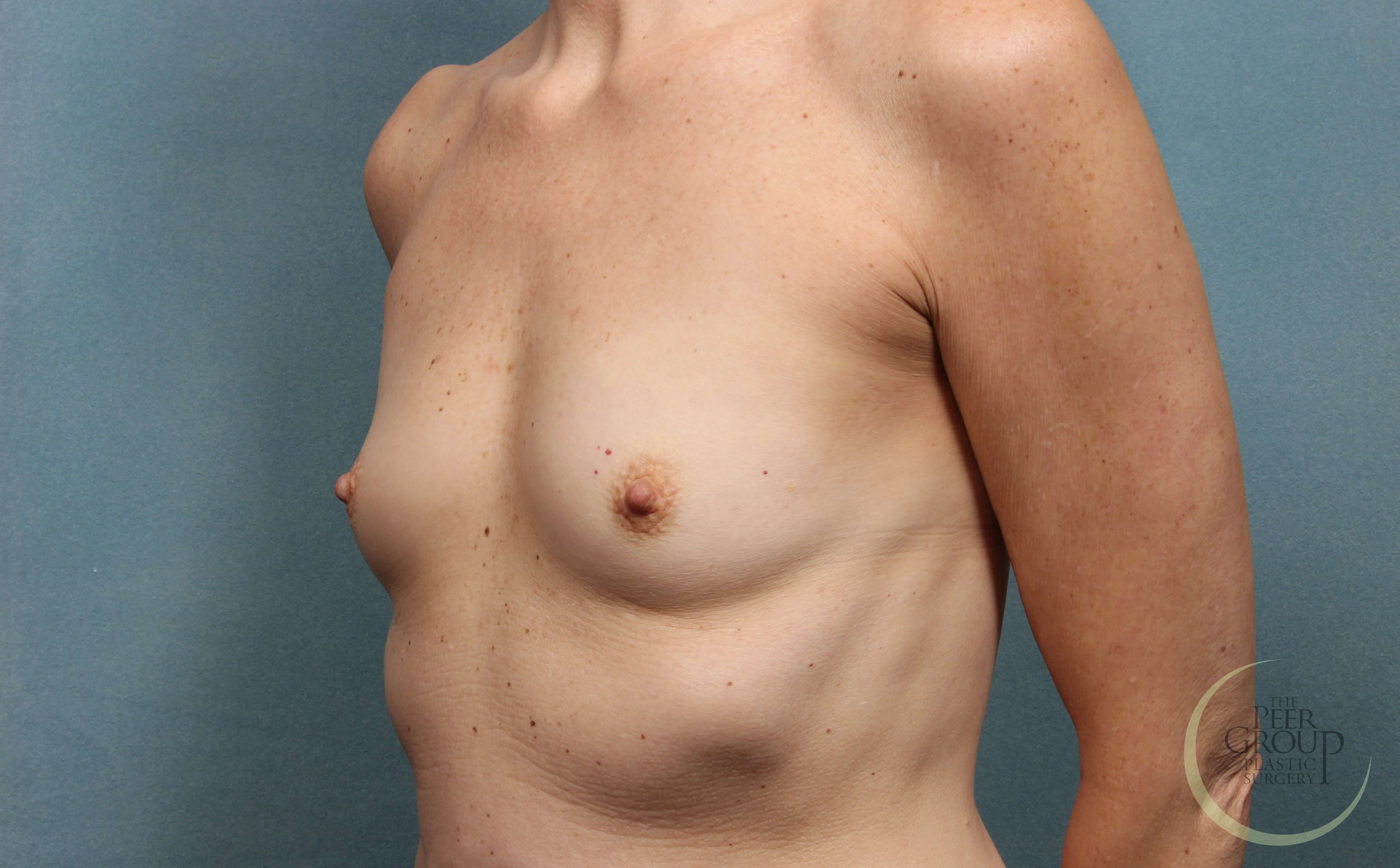 NJ Breast Augmentation Before