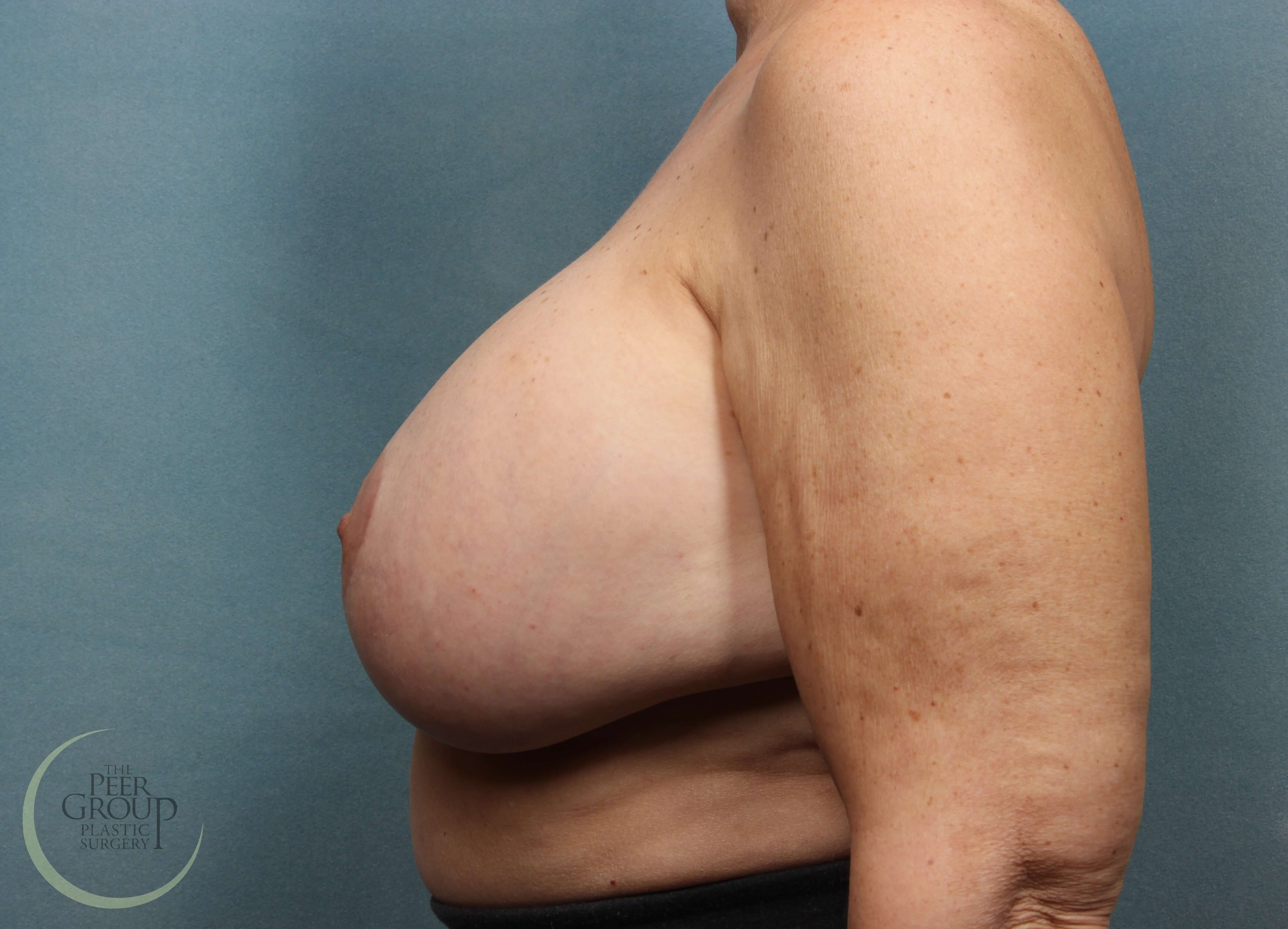 Breast Revision NJ Before