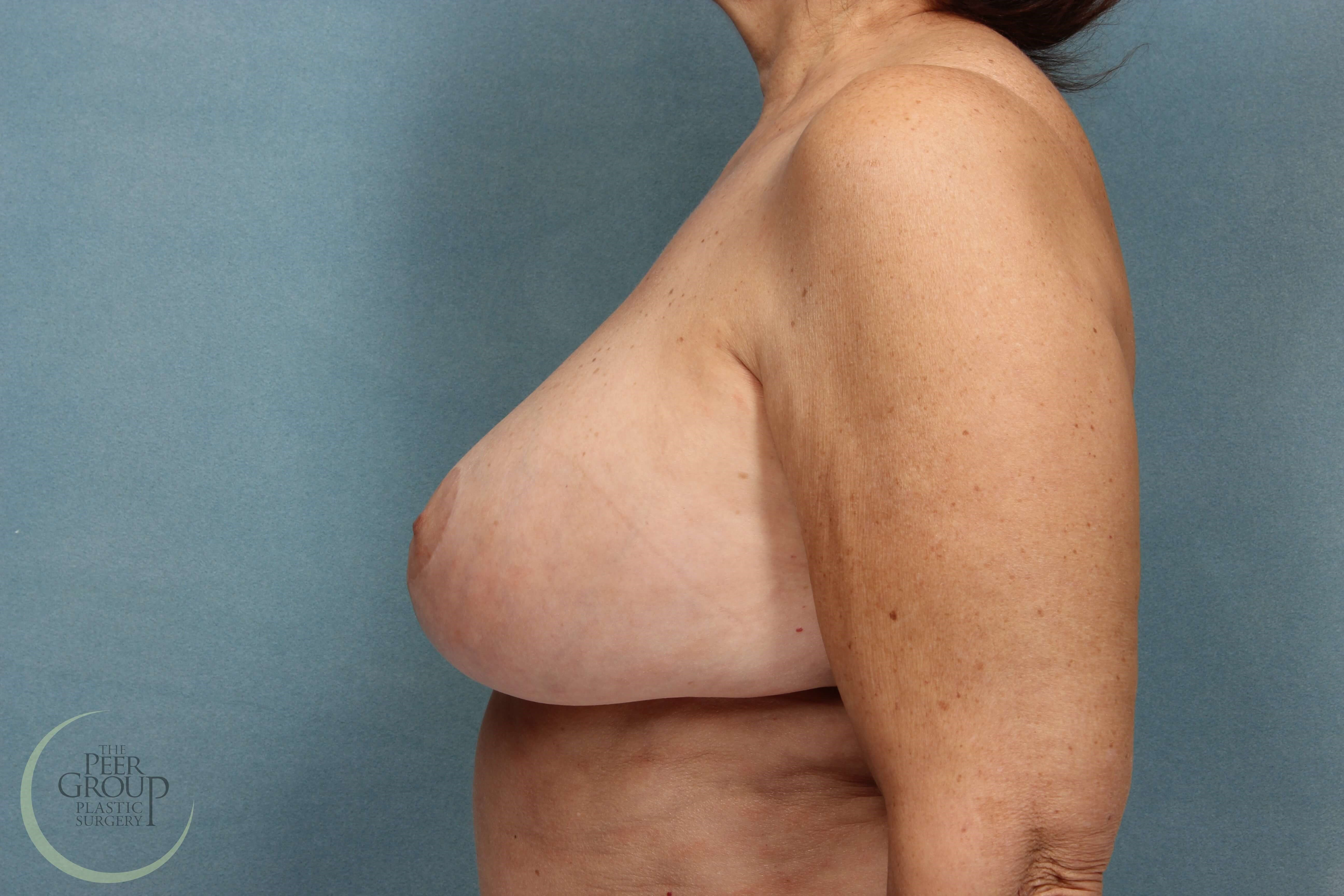 Breast Revision NJ After