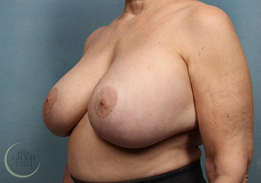 Breast Revision New Jersey Before