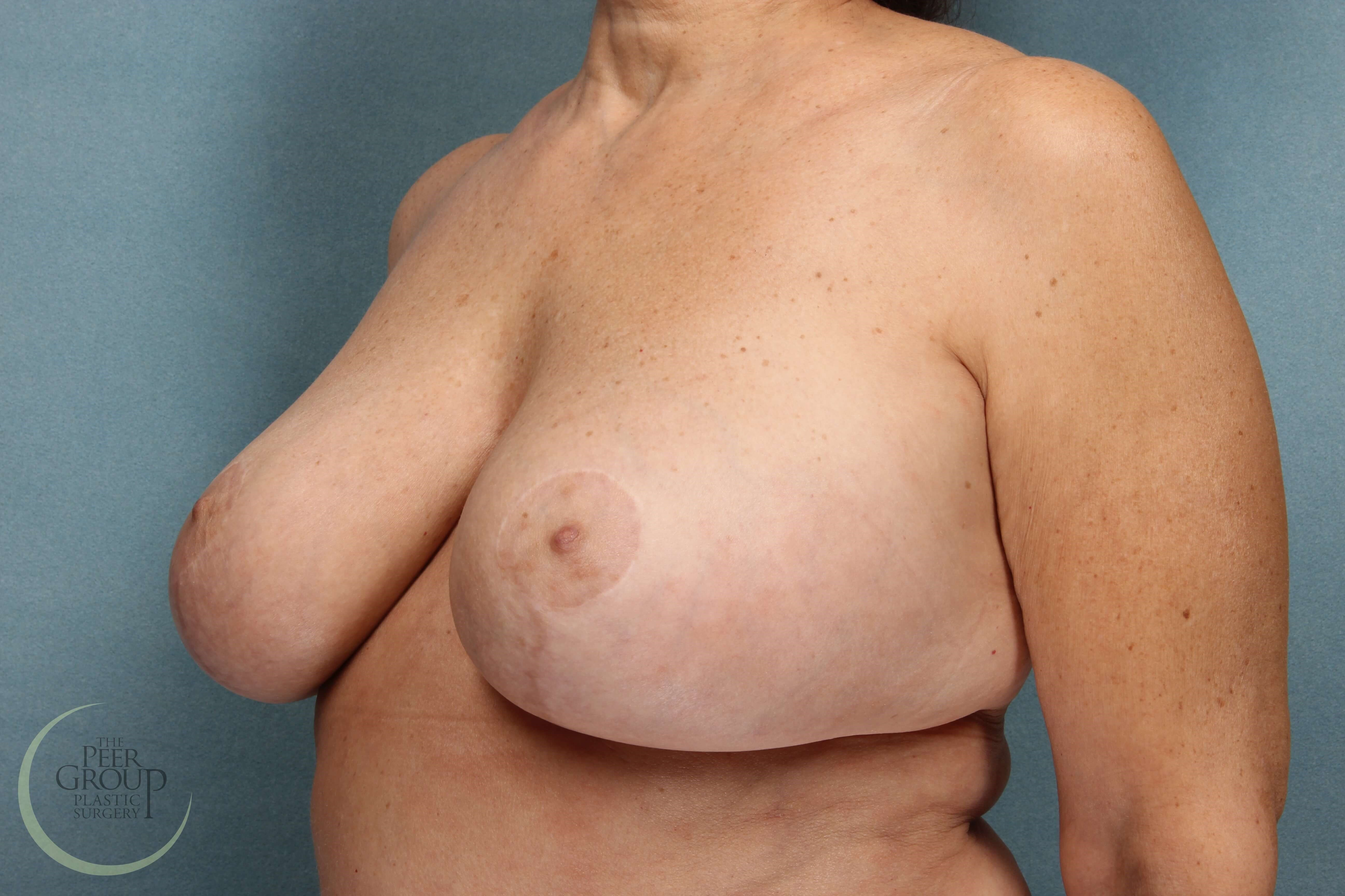 Breast Revision New Jersey After
