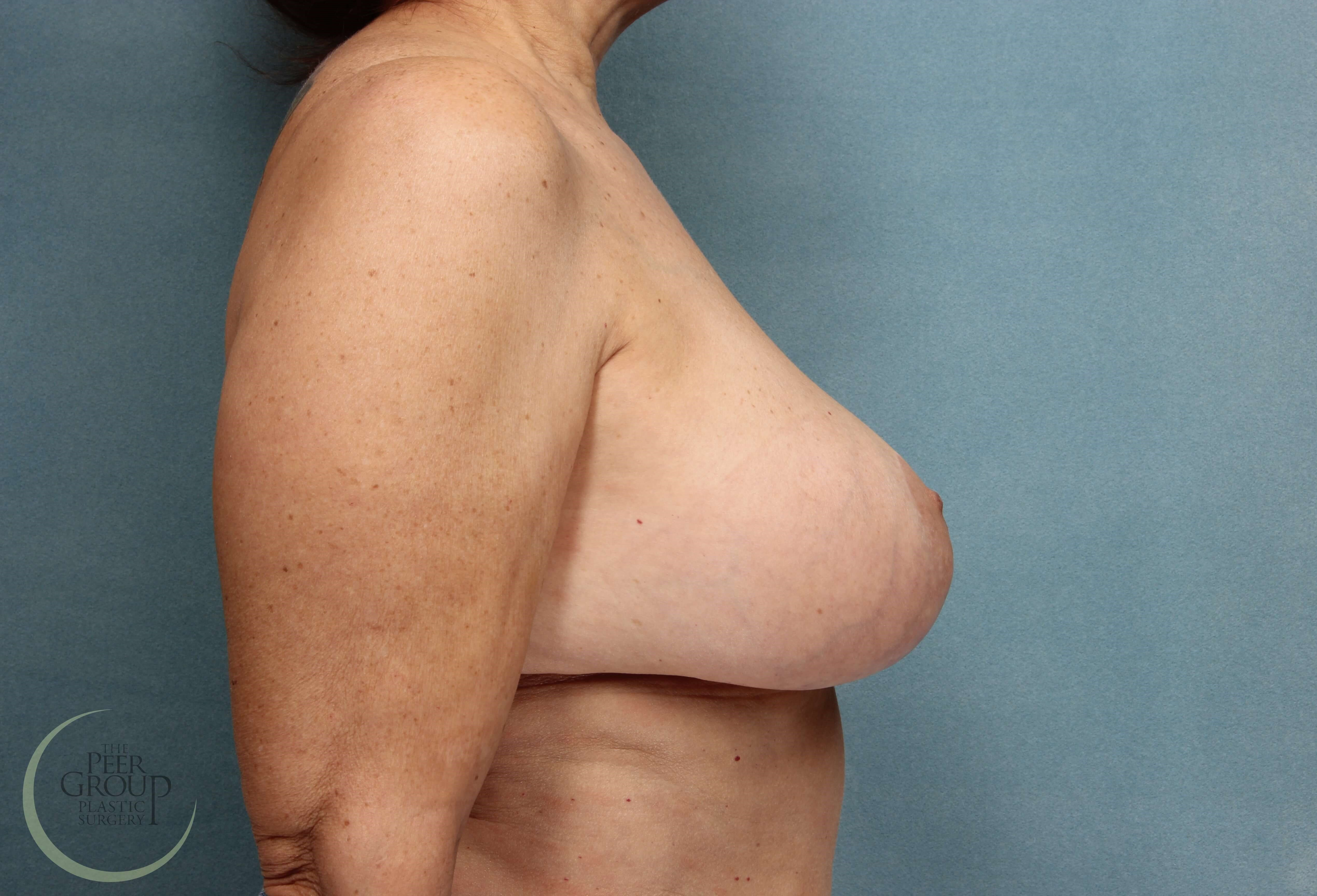 NJ Breast Revision After