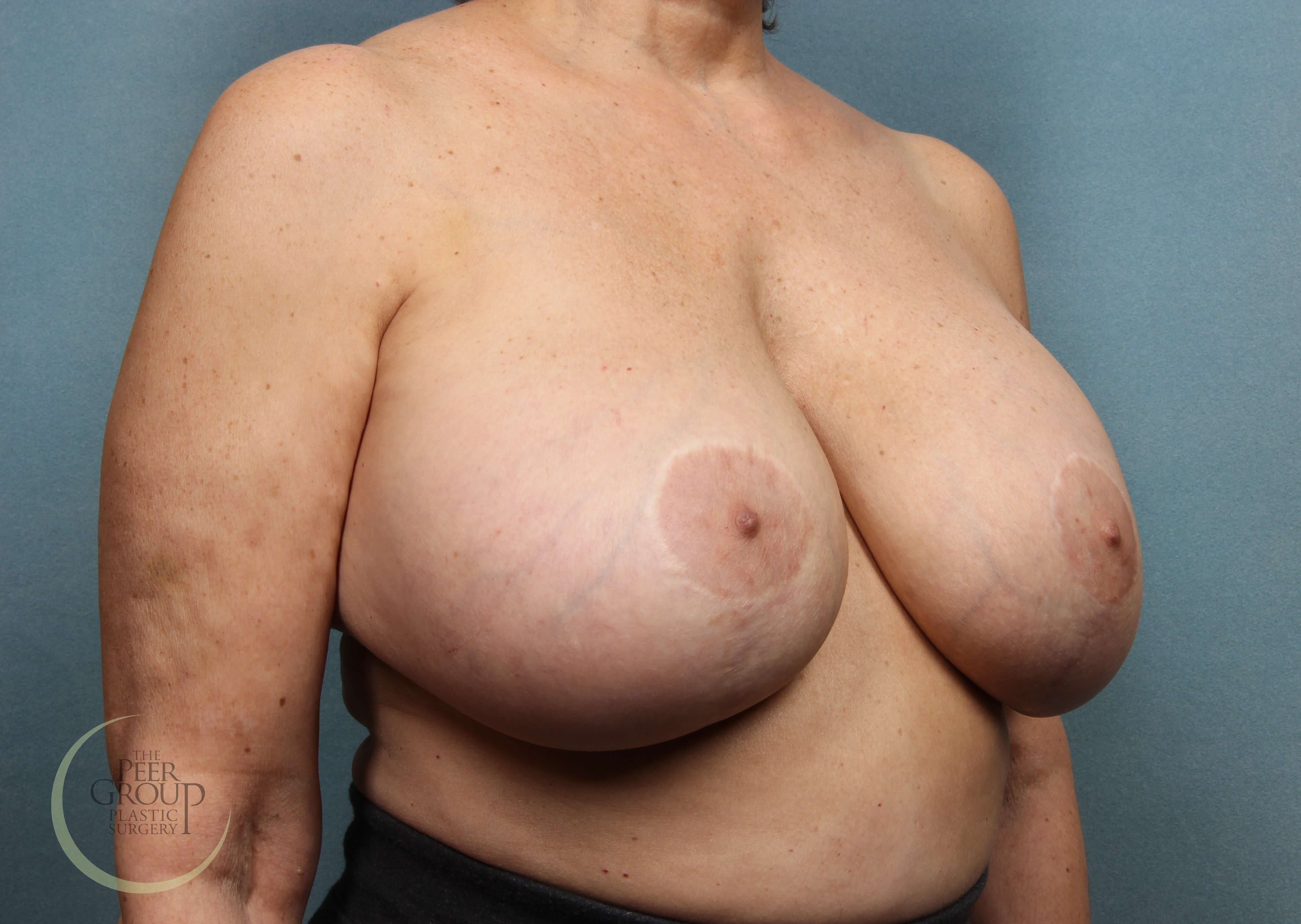 Breast Revision Surgery in NJ Before