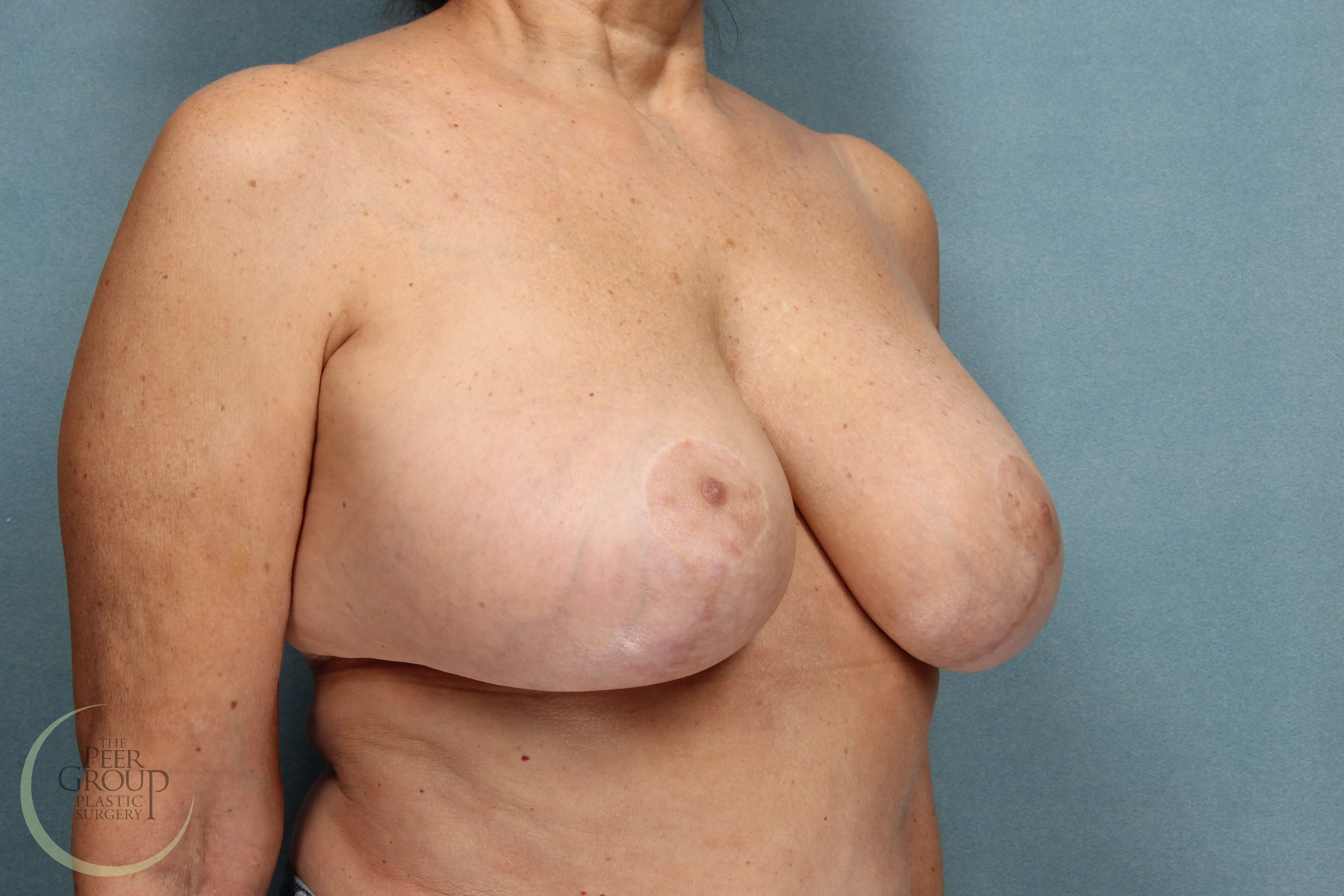 Breast Revision Surgery in NJ After