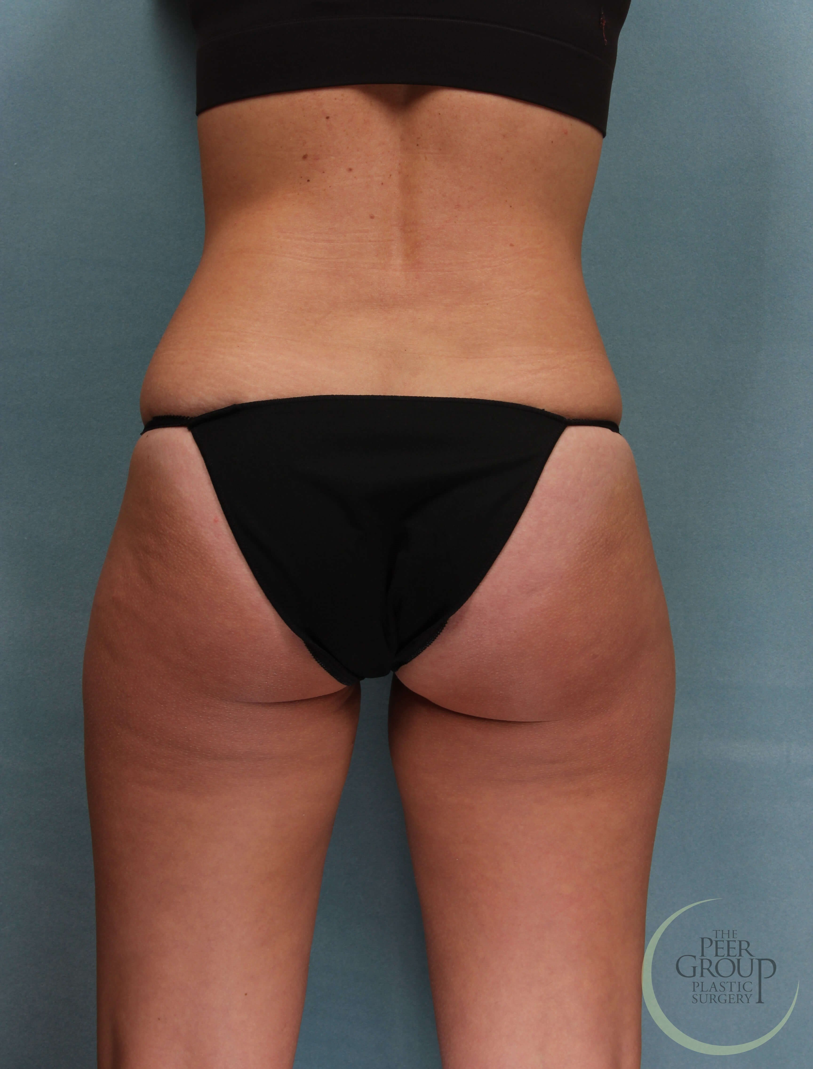CoolSculpting in New Jersey After