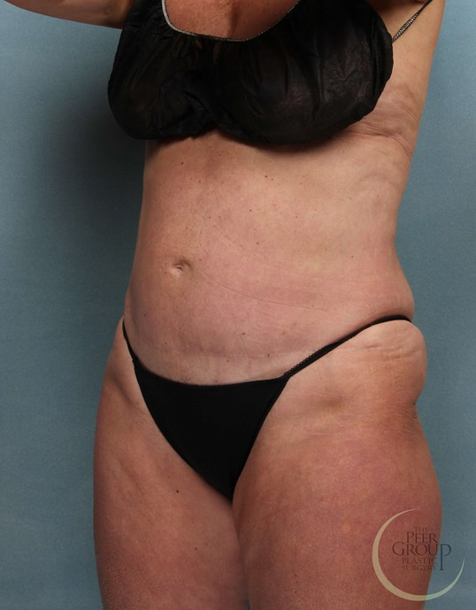 Fat Reduction NJ After CoolSculpting