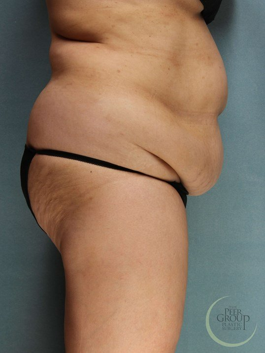 Tummy Tuck in New Jersey Before