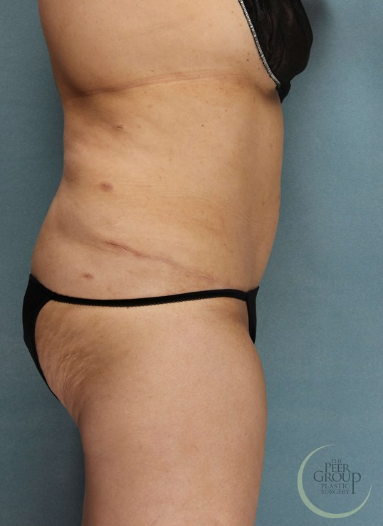 Tummy Tuck in New Jersey After