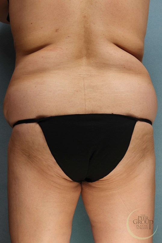 Tummy Tuck & Lipo in NJ Before