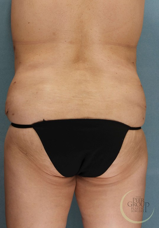 Tummy Tuck & Lipo in NJ After