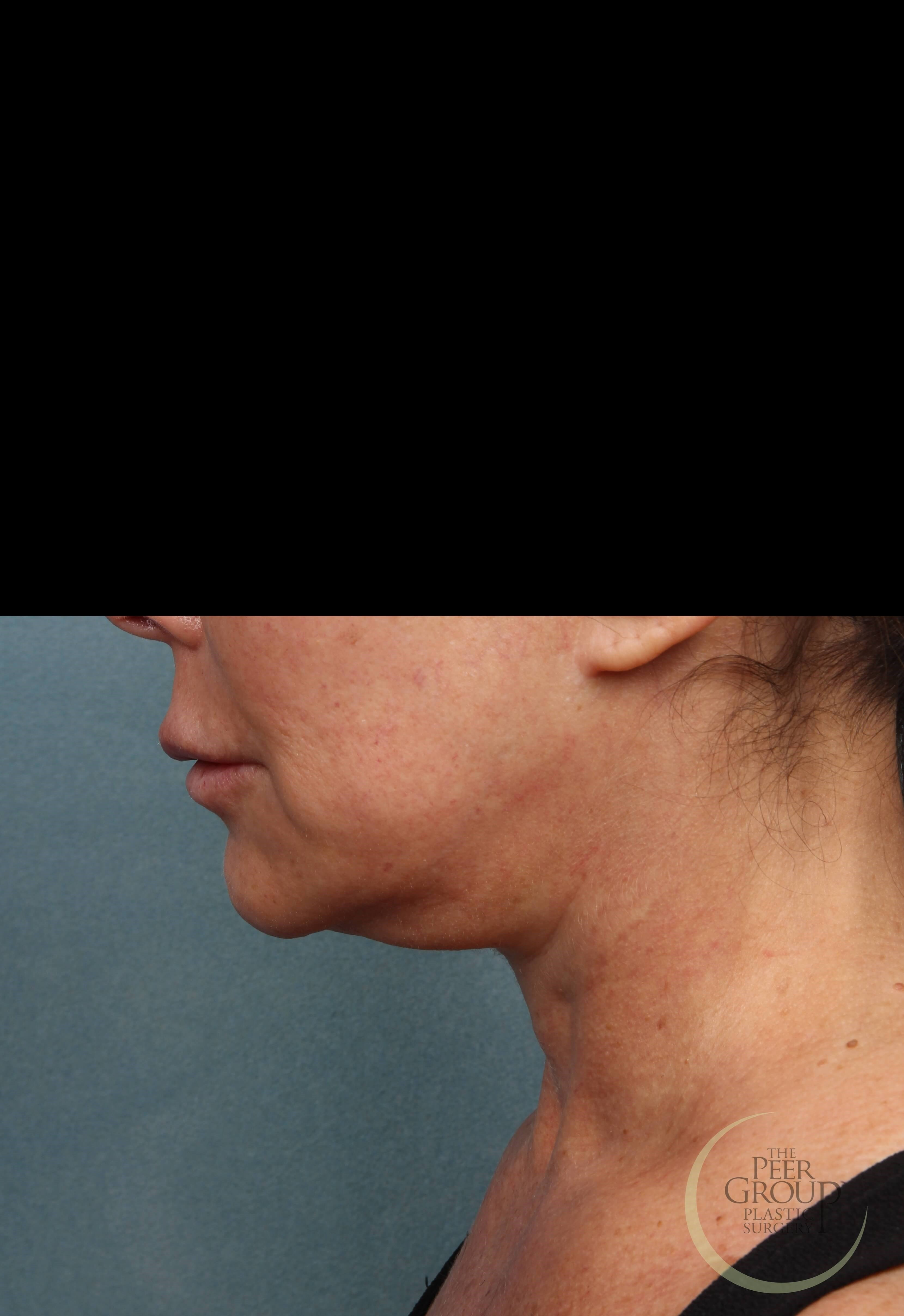 Neck Lift in New Jersey Before