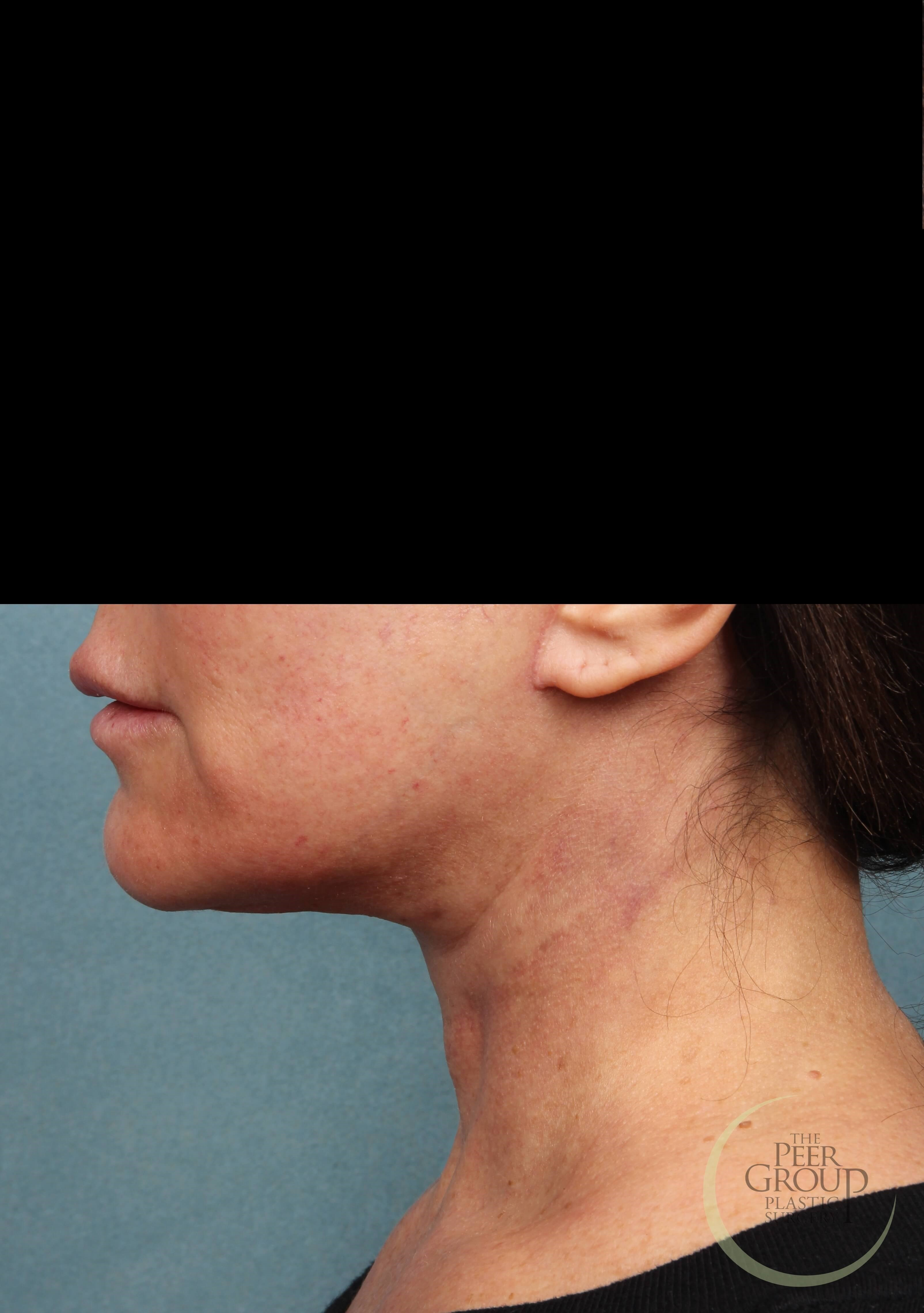 Neck Lift in New Jersey After