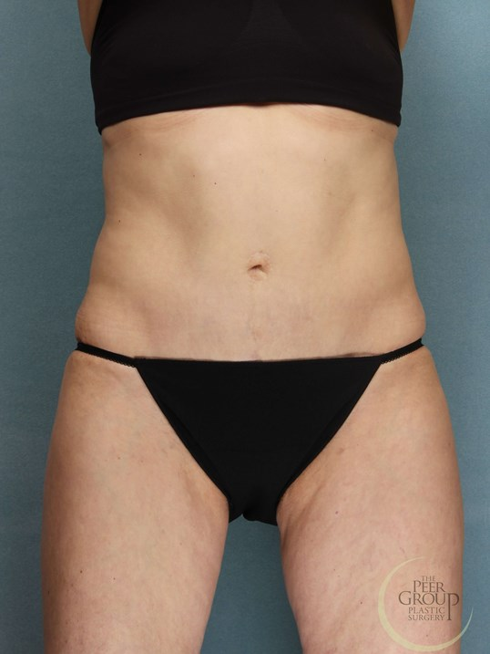 New Jersey Tummy Tuck After Tummy Tuck