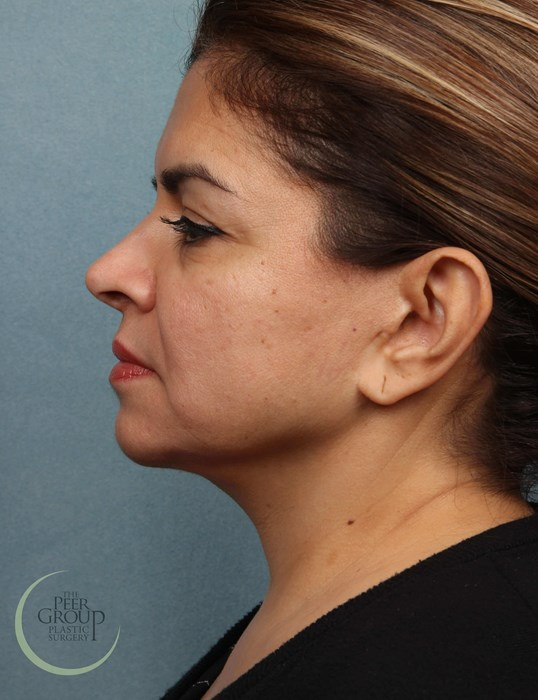 NJ Face and Neck Lift After