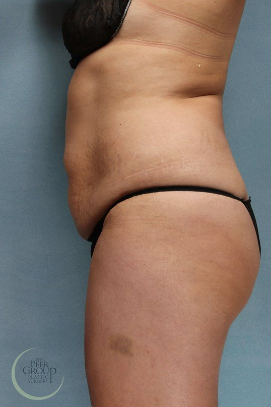 New Jersey Tummy Tuck Before