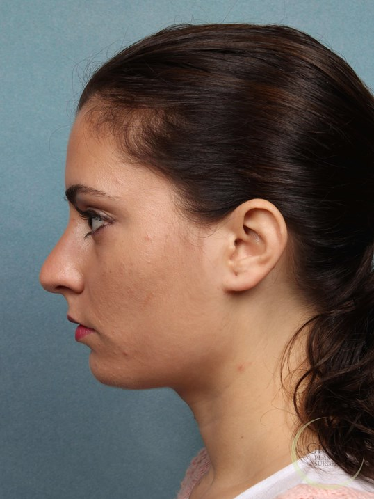 NJ Nose Job Rhinoplasty Before