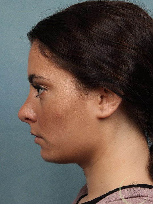 NJ Nose Job Rhinoplasty After