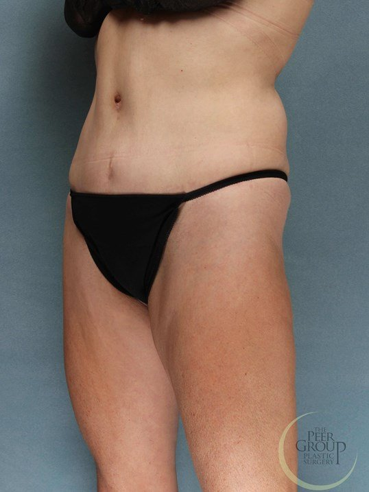 NJ Tummy Tuck After