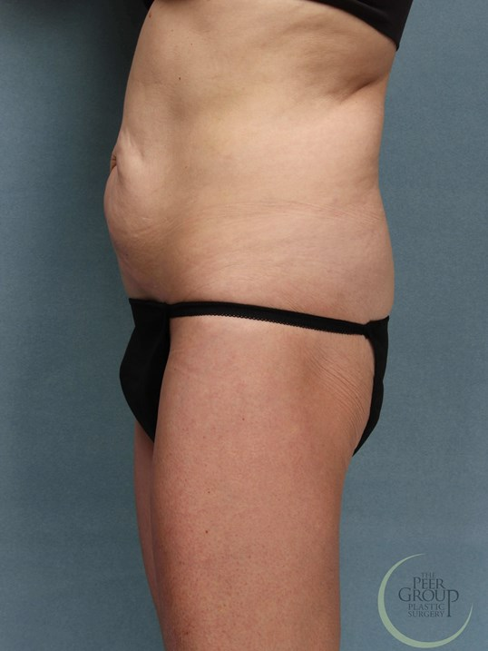 Tummy Tuck and Lipo NJ Before