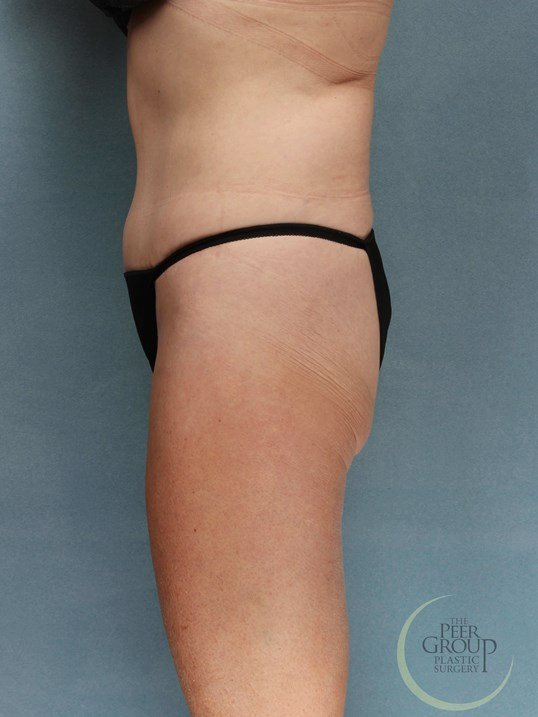 Tummy Tuck and Lipo NJ After
